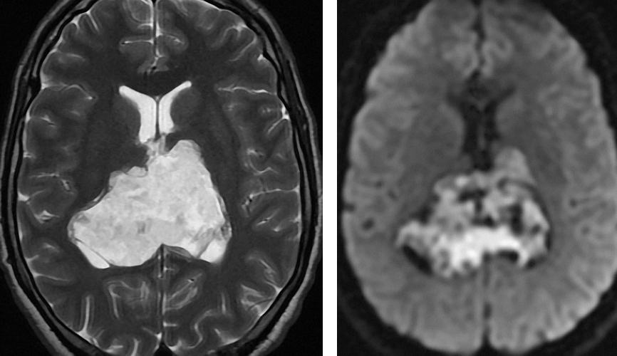Figure 11: Epidermoid cysts are isointense to CSF on T2 weighted images. Diffusion weighted imaging is beneficial for their differentiation from arachnoid cysts based on their increased signal due to a combination of true restricted diffusion and T2 shine through.