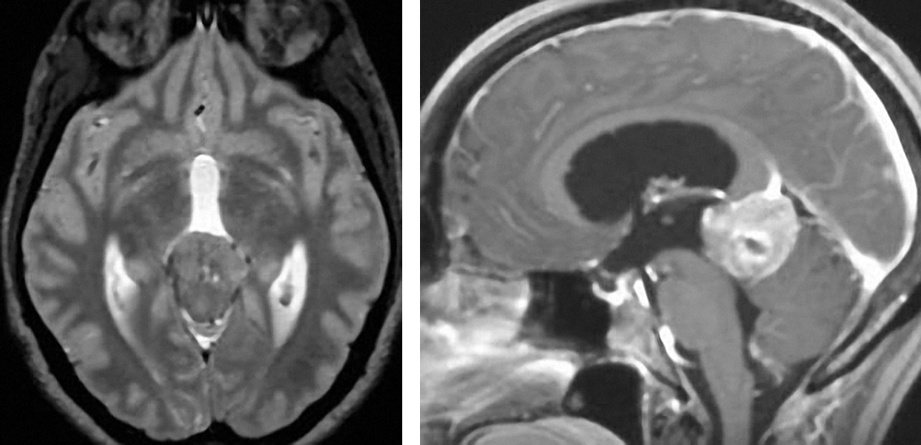 Figure 12: Pineoblastomas typically are T2 isointense and heterogeneously enhance upon administration of contrast.