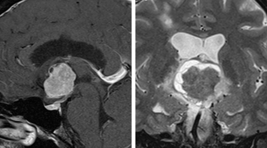 Figure 13:  The imaging characteristics of a chordoid glioma are depicted.