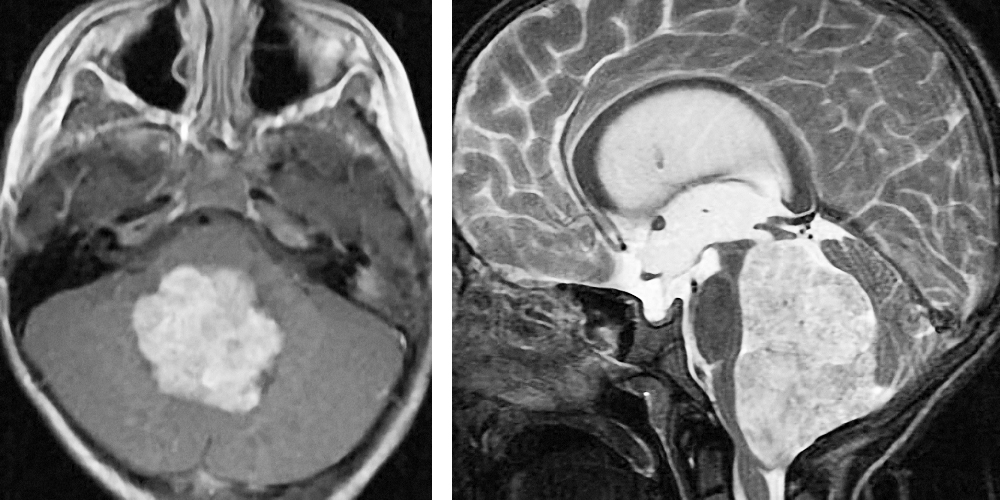 Figure 14:  Choroid plexus papillomas intensely enhance with administration of contrast and have very irregular borders. They are also hyperintense on T2 weighted images.