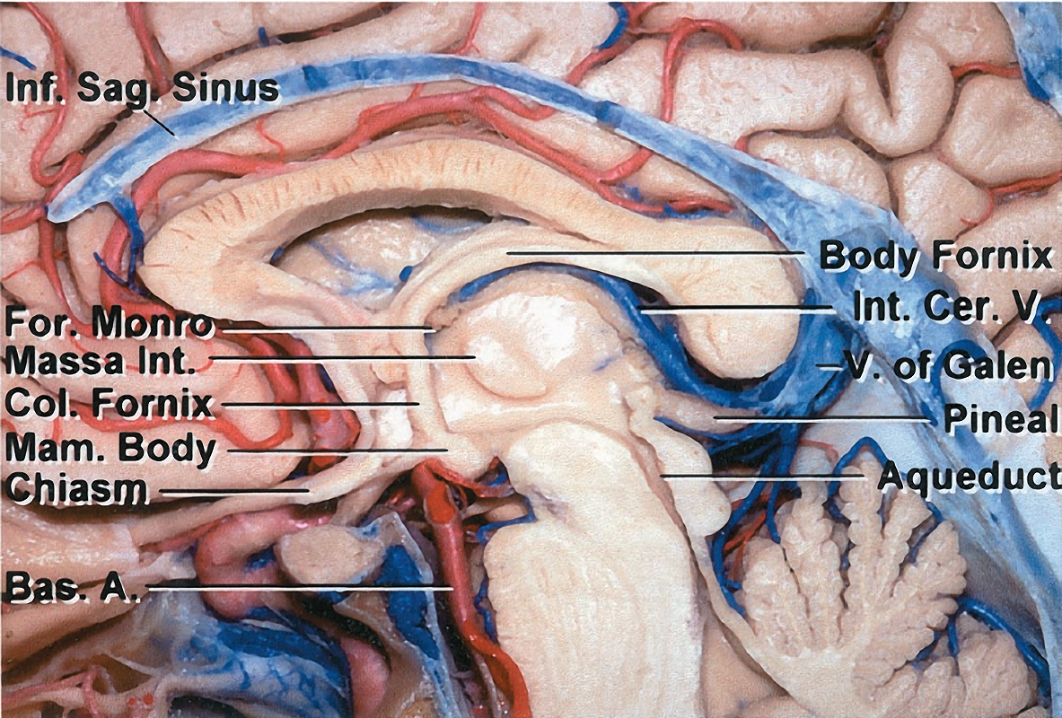 Figure 1: The corpus callosum is the largest anatomic interface with the lateral ventricle. This structure is divided into four segments. From anterior to posterior, these are the rostrum, genu, body, and splenium (image courtesy of AL Rhoton, Jr).