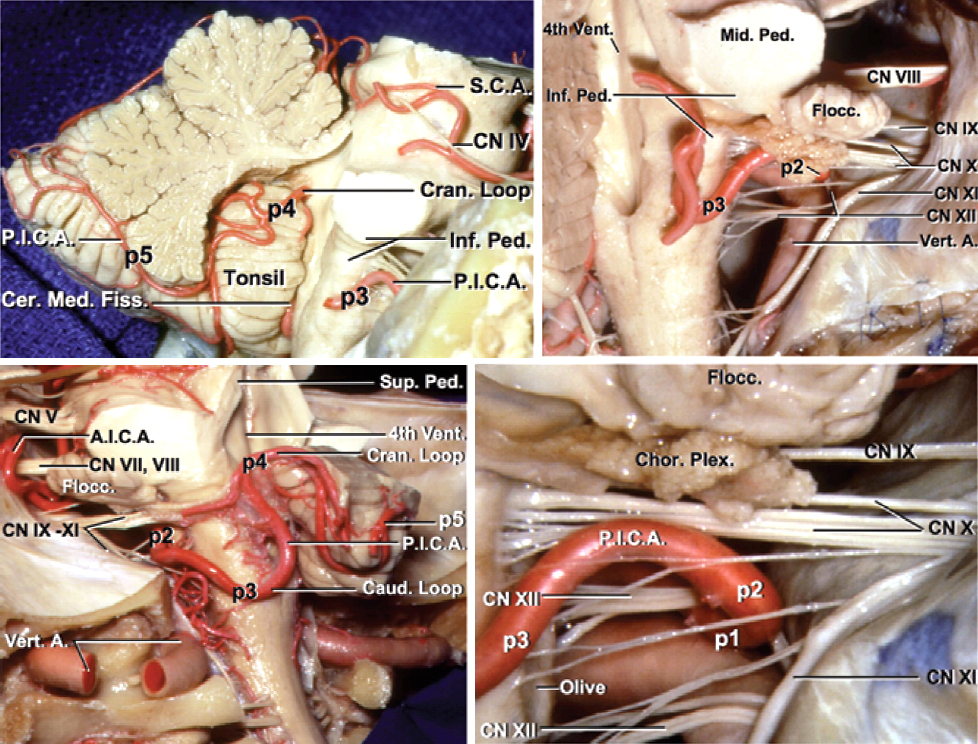 Figure 11: The morphology of the PICA from different views is depicted in these photos. The first three major PICA segments, namely the anterior medullary (P1), lateral medullary (P2) and tonsillomedullary (P3) segments, also provide arterial supply to the brainstem. Any segment of the PICA in close proximity of the brainstem can provide vascular support to the brainstem and should be preserved (images courtesy of AL Rhoton, Jr).