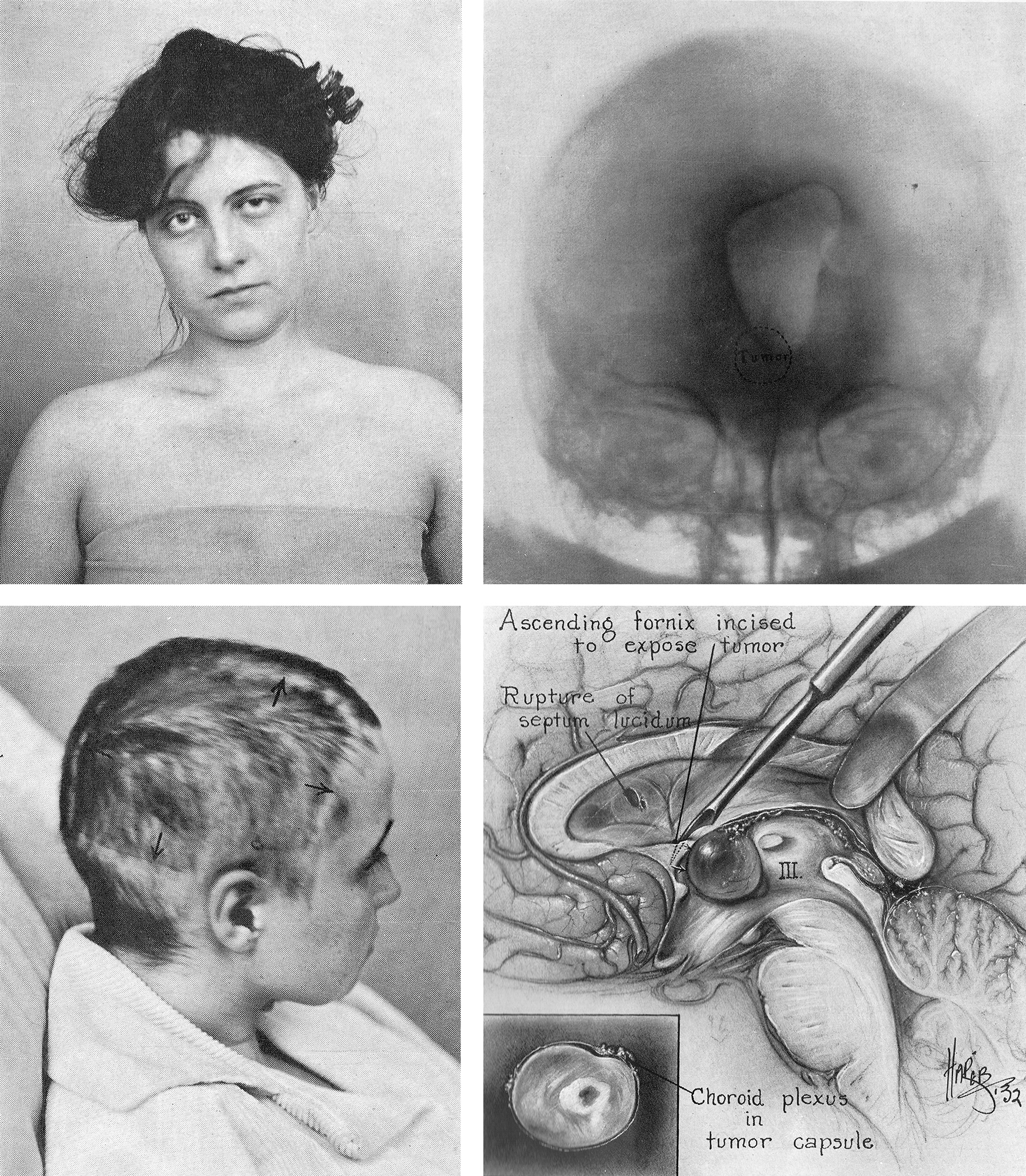 "Figure 1: These images show one of the earliest patients who underwent resection of her colloid cyst by Walter Dandy (left upper). The ventriculogram (right upper image) demonstrated noncommunicating ventriculomegaly. Dandy wrote: ""The tremendous bone flap as indicated by the incision was the pioneer attack upon this tumor"" (left lower image). The illustration (right lower image) details Dandy's technique."
