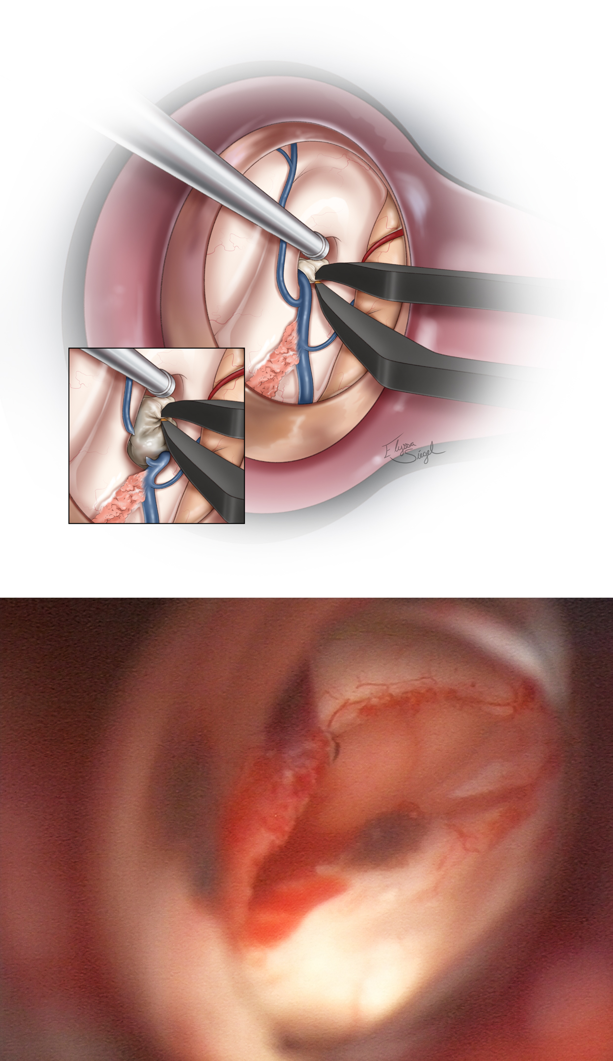 Figure 5: The cyst is drained and removed using standard techniques. If the cyst is large, the foramen may be enlarged via transection of the septal vein as it joins the thalamostriate vein at the posterior edge of the foramen (upper image, inset). The final view of the operative field after transection of the septal vein and removal of the cyst is shown (lower photo).