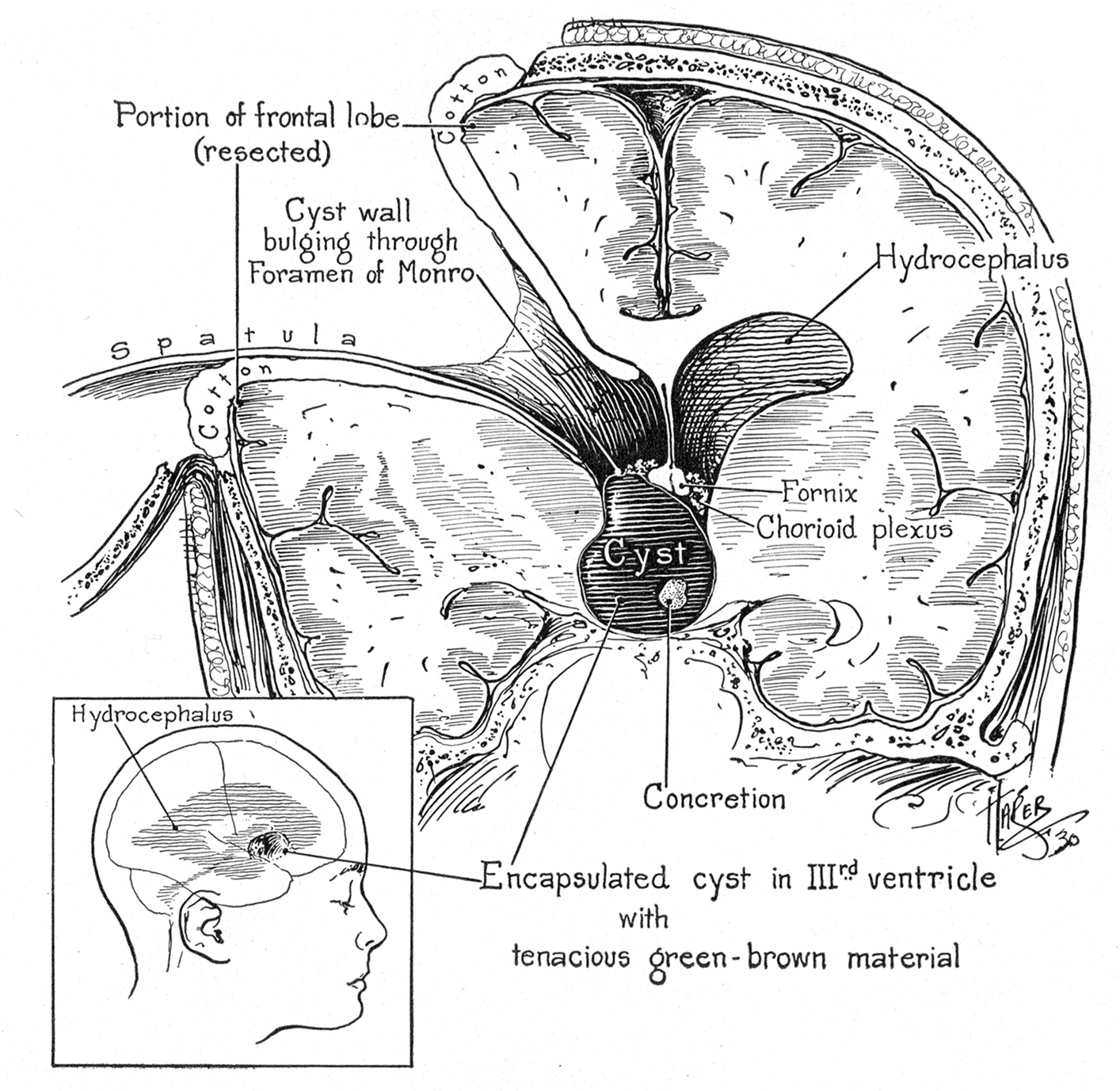 "Figure 1: Walter Dandy described partial resection of the frontal lobe to reach an anterior third ventricular tumor. He described the tumor as ""cystic containing calcified concretions"" (Dandy WE.  The Brain . Hagerstown, MD: Prior Company, 1966)."