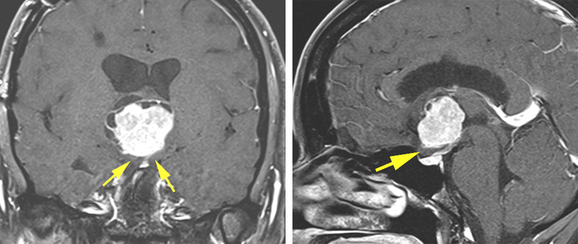 Figure 2: An anterior third ventricular chordoid glioma is pictured. This tumor had been previously approached via a transfrontal route at another institution. Because of the limited working angles of this approach, resection was abandoned at that time. I approached this tumor via a transcallosal expanded transforaminal transvenous route after disconnecting the septal vein and dissecting the anterior choroidal fissure. Note the location of the optic chiasm underneath the tumor (yellow arrows) and the limited space across the lamina terminalis. These features made the transnasal and subfrontal routes prohibitive.