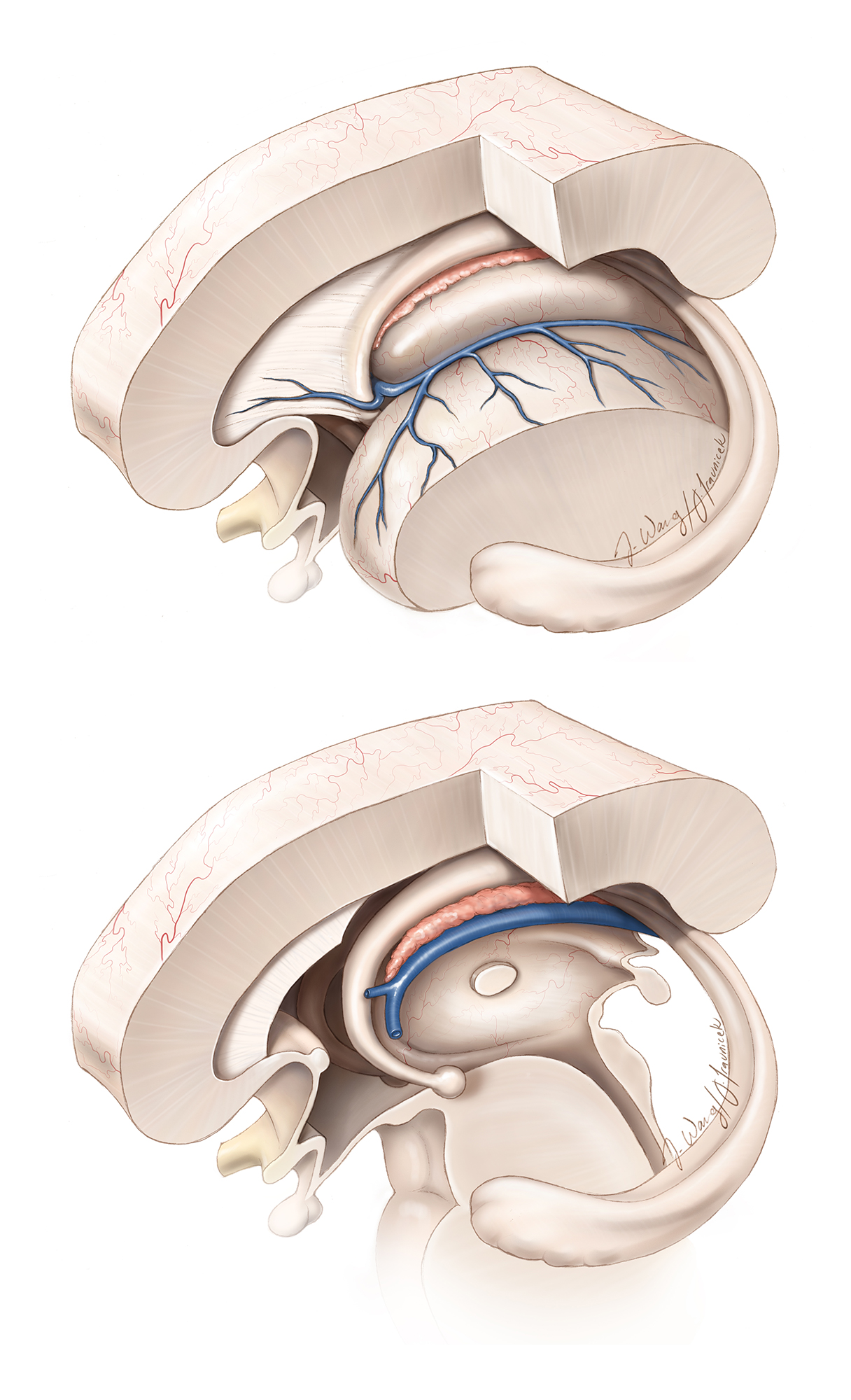 Figure 7: The operative anatomy of the choroid plexus, septal and thalamostriate veins are depicted in these illustrations. Transection of the septal vein at the point where it joins the thalamostriate vein is the key step in expanding the foramen via a small anterior transchoroidal dissection. The fornices and thalamostriate veins are strictly preserved.  Although I prefer to dissect the choroidal fissure along its thalamic side rather than its forniceal side to protect the fornix, the anatomy of the fissure is more likely to dictate the optimal side of dissection.  In other words, I do not recommend a uniform dissection strategy (always along the taenia thalami versus the taenia fornix). The fornix forms the borders of the anterior wall of the foramen and should be protected during movements of the instruments.