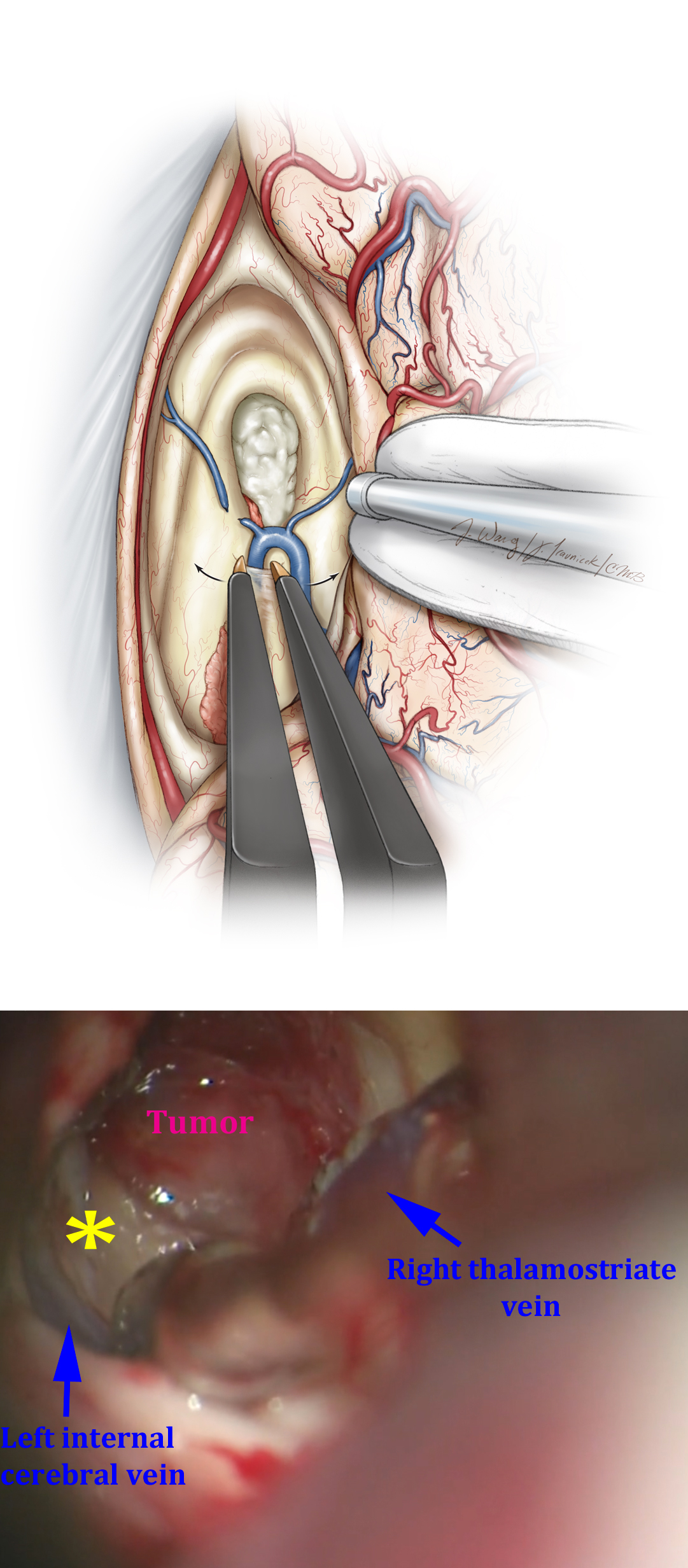 Figure 12: The transection of the anterior septal vein and transchoroidal dissection posterior to the thalamostriate vein provides excellent exposure of the anterior and middle portions of the third ventricle and the tumor. After the anterior septal vein is coagulated and sharply cut, the fornix is gently mobilized medially. There is usually a small section of ependyma between the posterior edge of the foramen and the anterior margin of the ipsilateral thalamostriate vein. This ependyma can be dissected open with micro dissectors and by gentle spreading the bipolar forceps (upper image). Collectively, these maneuvers significantly expand the foramen, facilitating improved visualization through the third ventricle (lower intraoperative photo). The left third ventricular wall is marked with *.