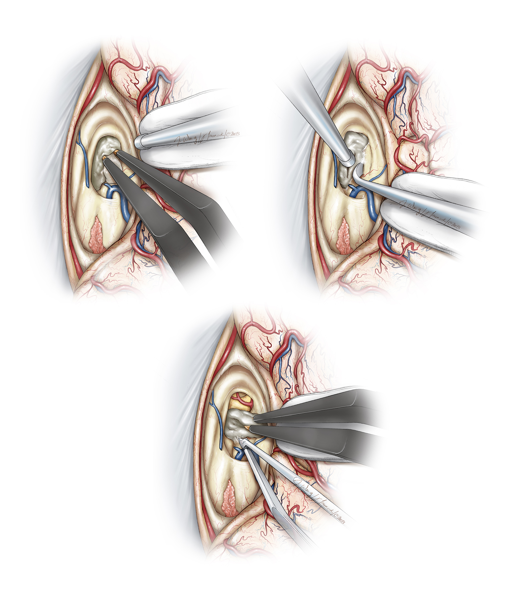 Figure 13: Before I debulk the tumor, I orient myself with respect to the walls of the ventricle so that I do not inadvertently penetrate the capsule during debulking maneuvers. I mobilize the tumor capsule from the superior walls of the ventricle (left upper image). Next, the tumor is enucleated using ultrasonic aspiration and its capsule is dissected away from the lateral walls (right upper image). These steps are repeated until the tumor capsule is sharply dissected off of the floor (lower image). If the tumor has eroded the floor of the third ventricle, the optic nerve and chiasm will often be apparent at the bottom of the resection cavity (Redrawn from Tew, van Loveren, Keller*).
