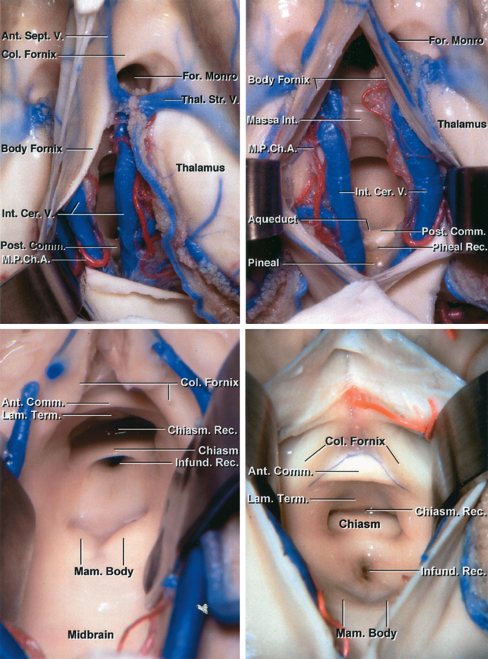 Figure 2: Transchoroidal and interforniceal dissections are demonstrated (upper row).Note the more encompassing exposure of the interforniceal approach with wide disclosure of the internal cerebral veins and the floor of the third ventricle. The lower images further identify relevant anatomical structures on the floor. This wide exposure is possible at the expense of potential injury to both forniceal bodies. The highly vulnerable internal cerebral veins should not be retracted aggressively.