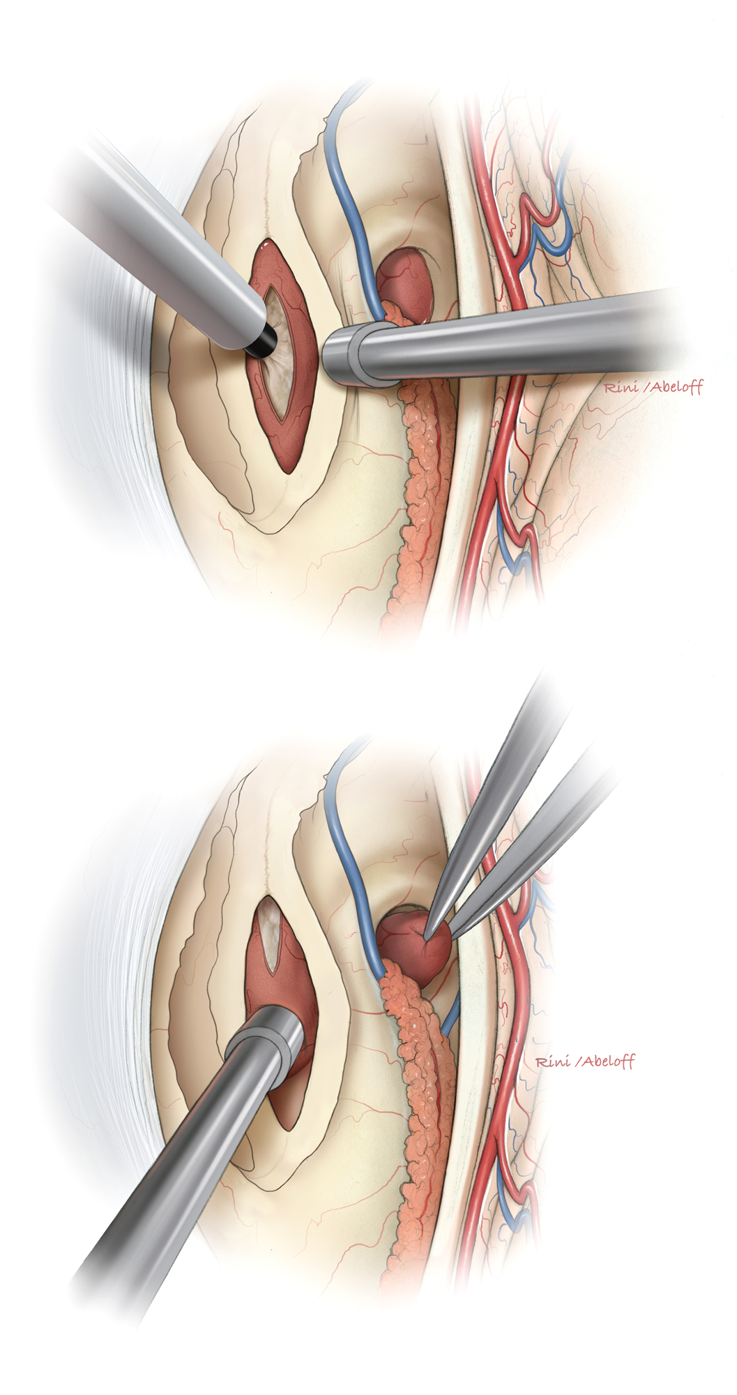Figure 7: The ultrasonic aspirator is needed to remove the tumor without placing the vital surrounding structures including the walls of the third ventricle under undue traction (top). The enlarged foramen of Monroe may be accessed for removing the anterior pole of the tumor (bottom).