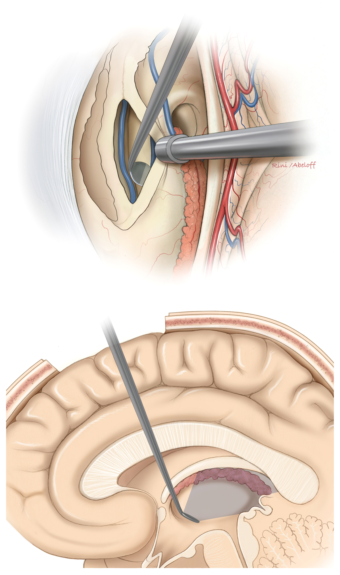 Figure 8: The tumor is cautiously separated from the internal cerebral veins (top). An angled micromirror (dental mirror) can expand the viewing angles and reveal/inspect the posterosuperior space within the third ventricle (the operative blind spot)(bottom).