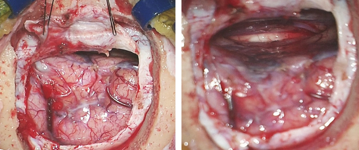 """Figure 9: A small right frontal craniotomy and interhemispheric approach were completed for the tumor depicted in Figure 1. The patient's head is in the lateral position with the right side """"down."""" The lateral position may lead to novice operator's disorientation in regard to the anatomic landmarks that demarcate the operative corridor."""