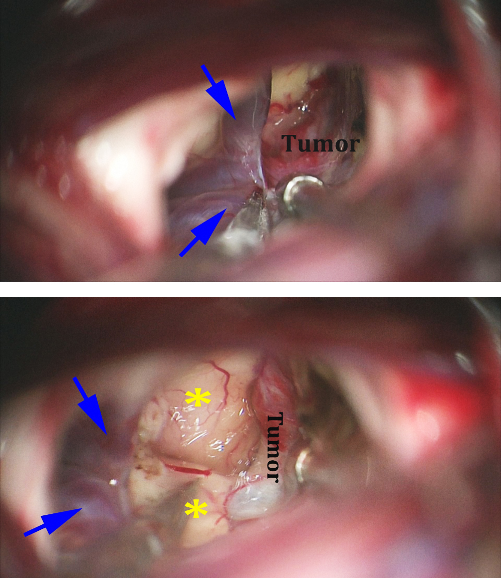 Figure 12: The internal cerebral veins (blue arrows) are separated using microscissors so that the posterior capsule of the tumor can be exposed (top image). This maneuver allows identification of the posterior third ventricular wall (*) and the posterior capsule of the cyst (lower photo).