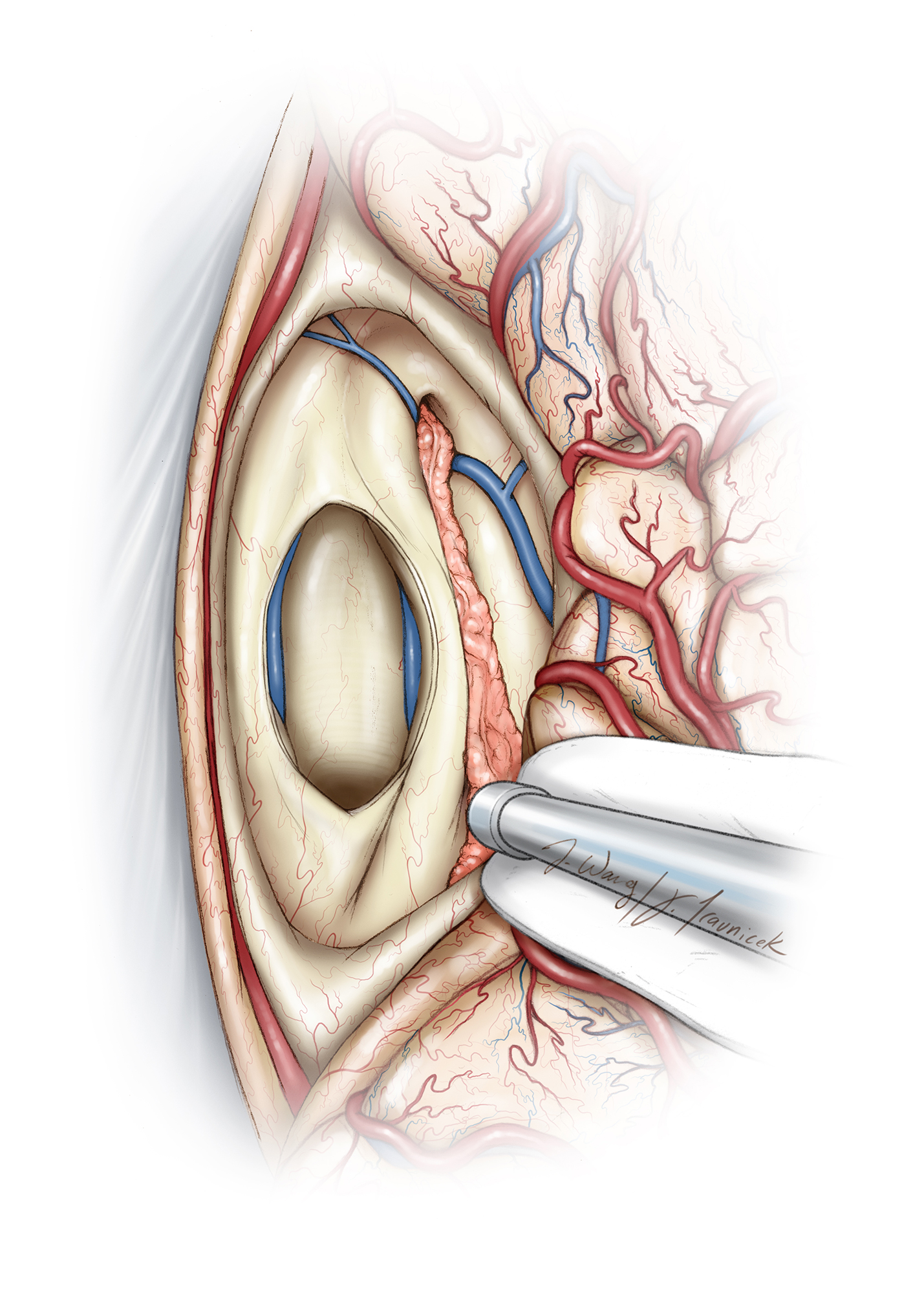 Figure 12: I often place a small cottonoid patty at the floor to prevent dispersion of the debris, especially if a shunt is in place. At this point, I can usually separate the tumor from the pial-arachnoid boundary around the tectal plate and superior cerebellum. Larger tumors invade the tectum, and gross total resection of the mass exposes the fourth ventricle. A distinct arachnoid plane separates the vein of Galen from the tumor capsule (Redrawn from Tew, van Loveren, Keller*).