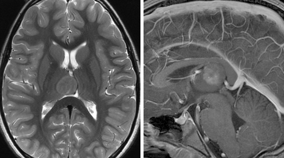 Figure 14: Intra-axial or exophytic lesions that arise from the posterior thalamus may be reached via the paravenous variant of the above approach. This ganglioglioma was approached via this route.