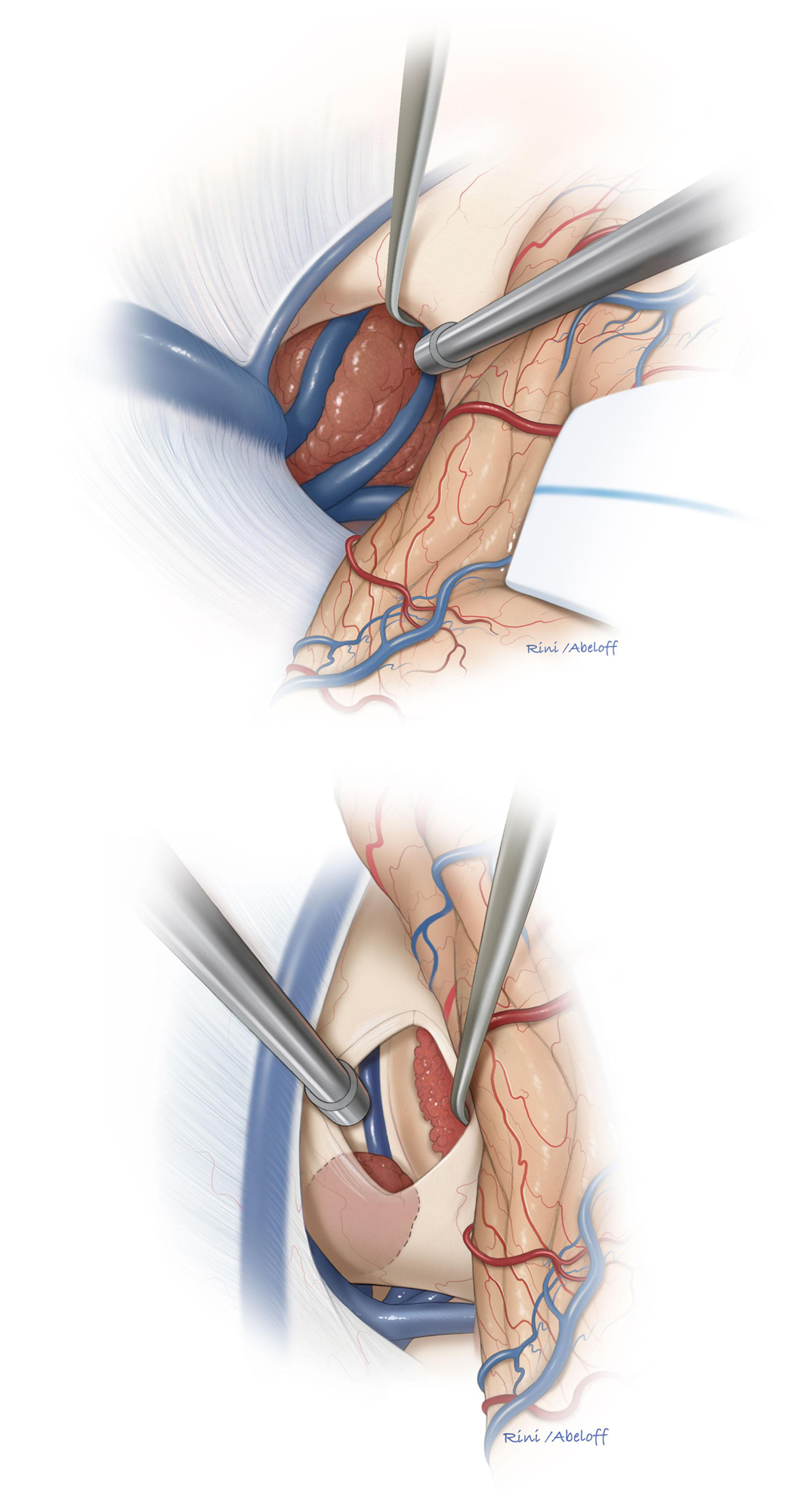 Figure 17: The splenium is mobilized and gently retracted to bring the lesion into view (Top). Alternatively, a small but affected portion of the splenium may be transected for reaching a more anterior lesion that primarily resides within the splenium (bottom).