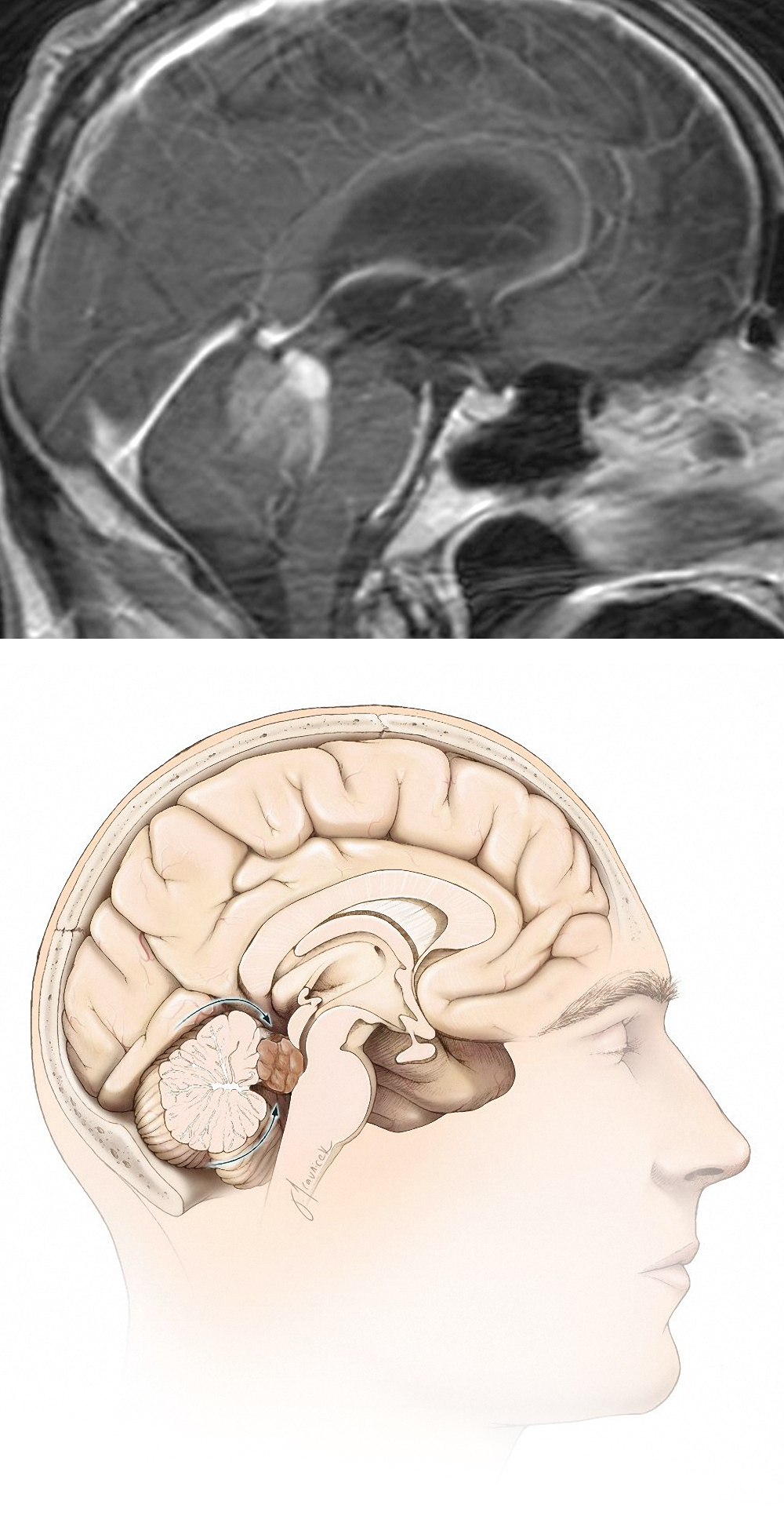 Figure 8: A small inferior vermian split is often safe for exposure of large cranially situated fourth ventricular tumors near the superior medullary velum and the pineal region (top image). Alternatively, a combined telovelar and supracerebellar approach may be attempted (bottom illustration).