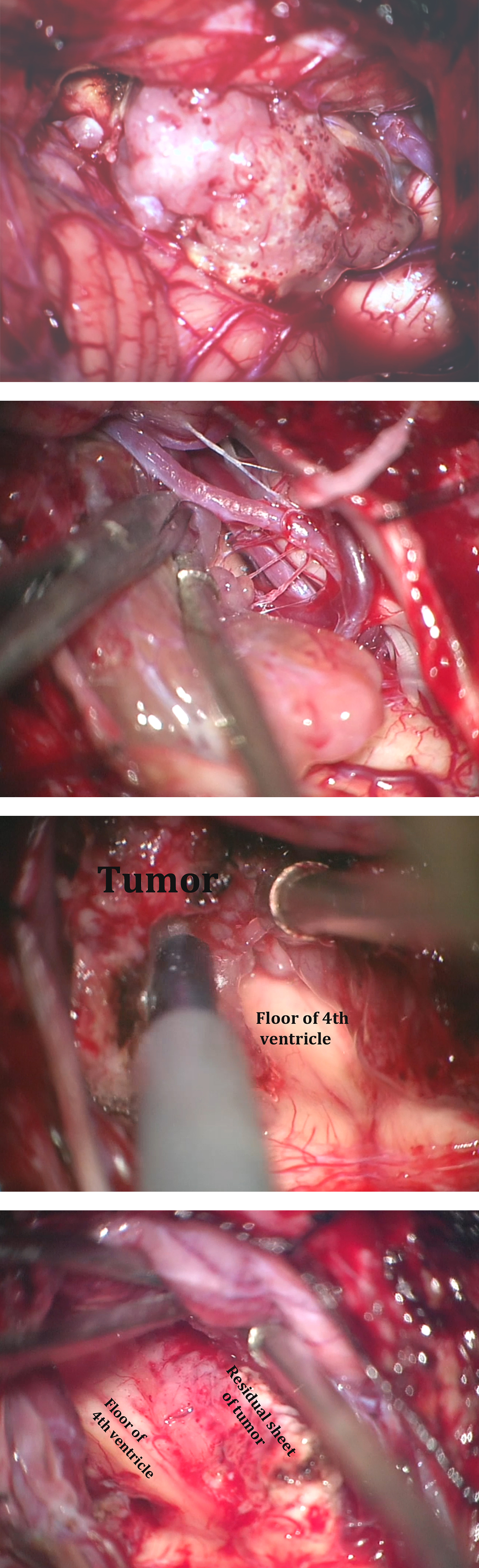 Figure 12: These intraoperative photos demonstrate the steps involved in resection of the ependymoma shown in Figure 2. The top two images show the tumor and microsurgical dissection of the right PICA. The bottom two images show tumor removal using ultrasonic aspiration while leaving a thin sheet of tumor over the infiltrated floor laterally (lower image-right brachium pontis).