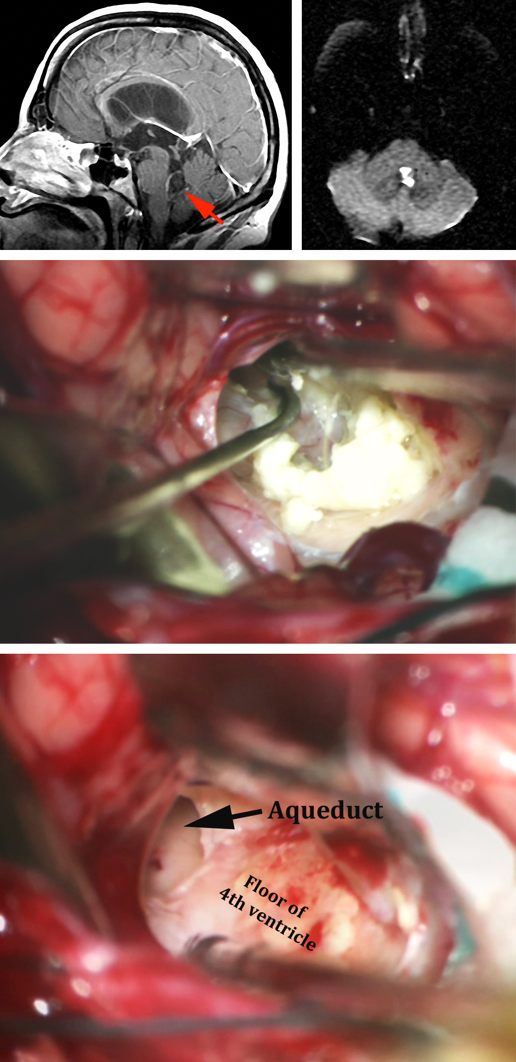 Figure 13: The use of the telovelar approach for removal of a fourth ventricular dermoid (top MRIs-red arrow) is shown (middle photo). Following removal of the tumor contents, the adherent capsule is left on the floor and the entry into the aqueduct is apparent (lower photo).