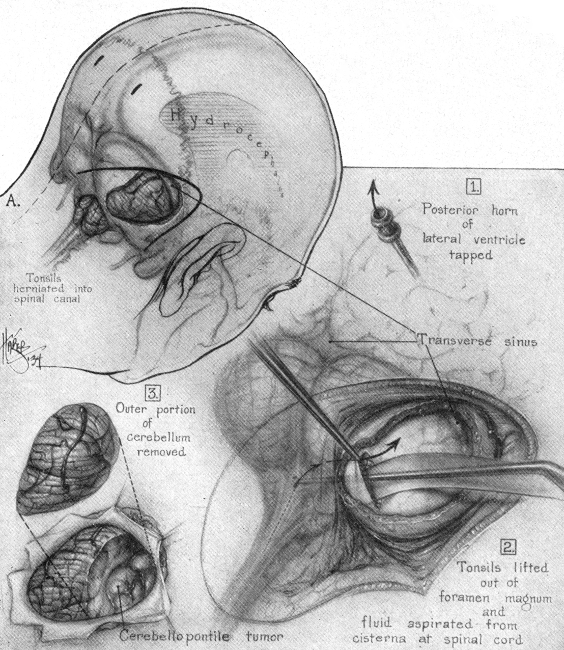 Figure 1: Walter Dandy demonstrated his stepwise technique for resection of acoustic neuromas: 1) relief of intracranial tension through the use of ventriculostomy, 2) further cerebrospinal fluid drainage through the cisterna magna upon dural opening, and 3) final exposure of the tumor via resection of the lateral cerebellum (Dandy WE.  The Brain . Hagerstown, MD: WF Prior Company, 1966).