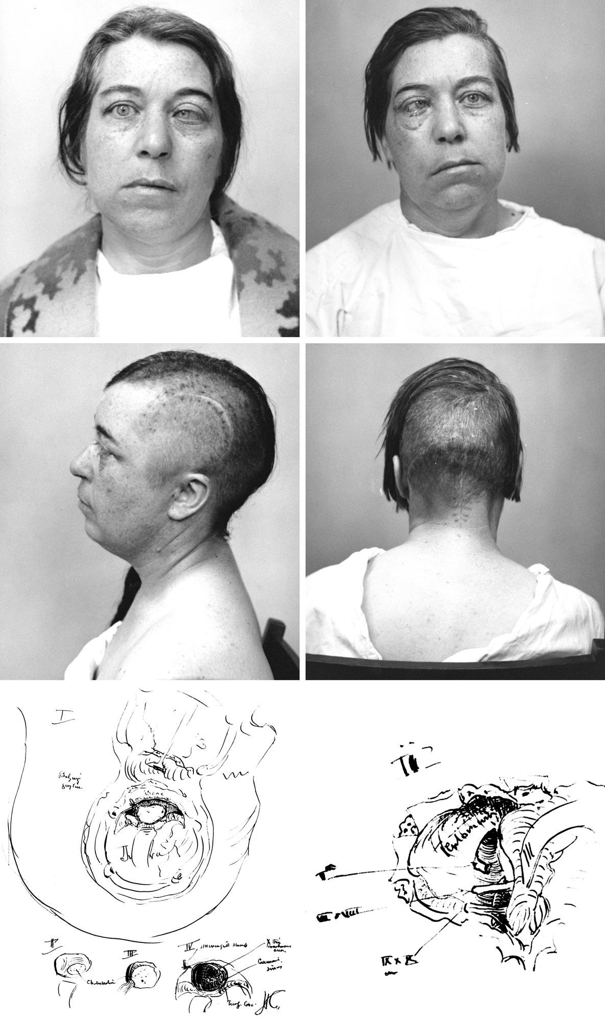 Figure 1: This patient of Harvey Cushing's underwent a two-stage operation (subtemporal and suboccipital) for resection of a large petroclival cholesteatoma in 1928. This is likely one of the first cases of Cushing's that demonstrated his technical expertise in handling complex skull base lesions. The upper images depict the patient's preoperative cranial nerve dysfunctions before both operations. The images in the middle row show Cushing's incisions for the staged procedures, and the lower images illustrate his intraoperative findings (images courtesy of the Cushing Brain Tumor Registry at Yale University).