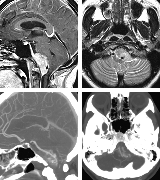 Figure 2: This patient presented with imbalance and cranial nerve XII palsy and was diagnosed with a compressive foramen magnum meningioma. A CT angiogram was very helpful in revealing the extent of tumor calcification and the route of the vertebral artery engulfed by the tumor. A subtotal removal was accomplished.