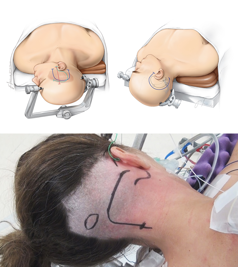 Figure 12: Patient positioning for anterior petrosal (left upper), posterior petrosal (right upper), and transcondylar (lower) osteotomies. Please see their corresponding chapters for more details.