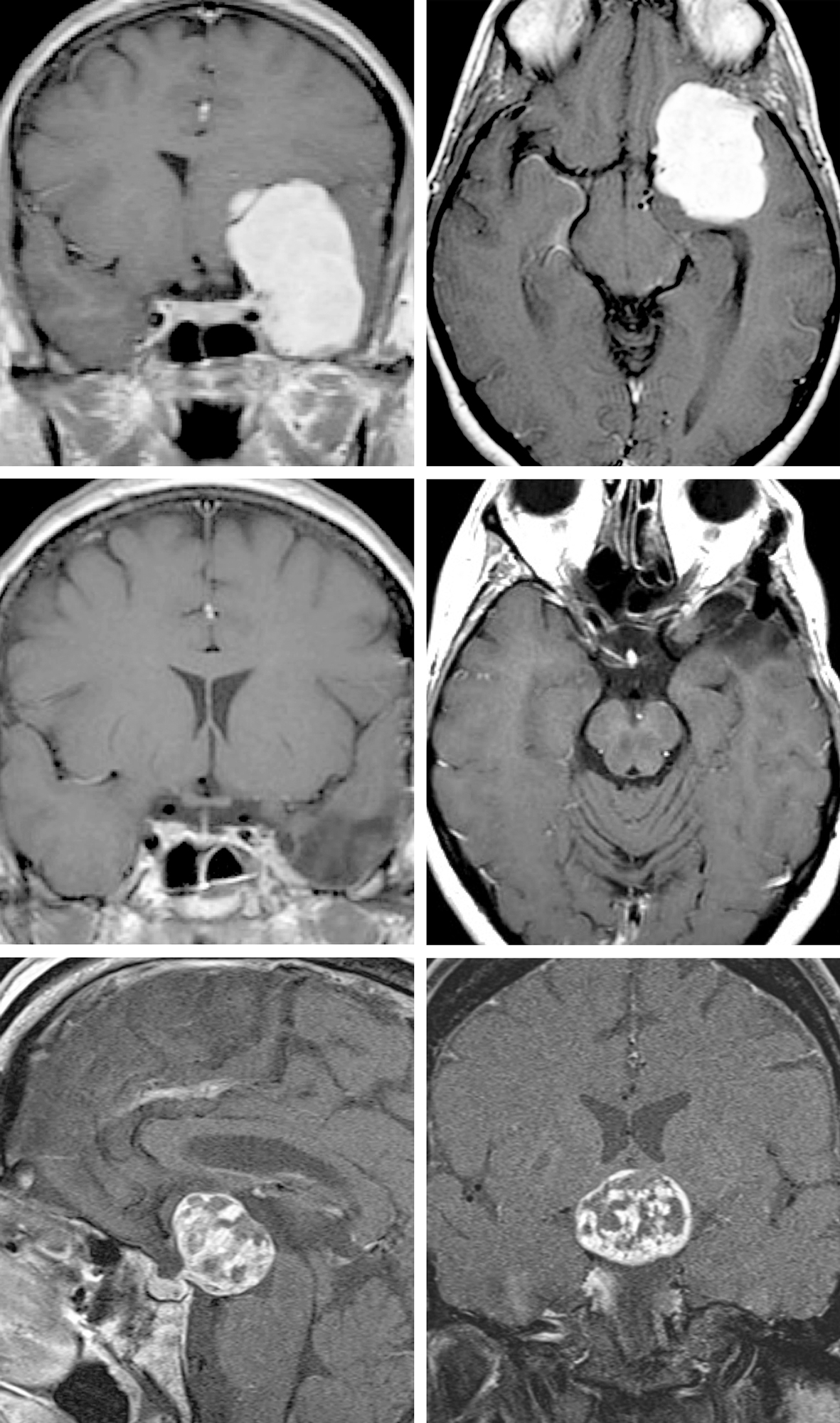 Figure 2: This large medial sphenoid wing meningioma (top photos) was resected via the modified OZ (middle photos). The significant superior extension of the tumor required a steep inferior-to-superior intradural operative trajectory afforded through the orbital trim osteotomy. Similarly, this third ventricular craniopharyngioma (bottom images) was removed via the same approach through the lamina terminalis.