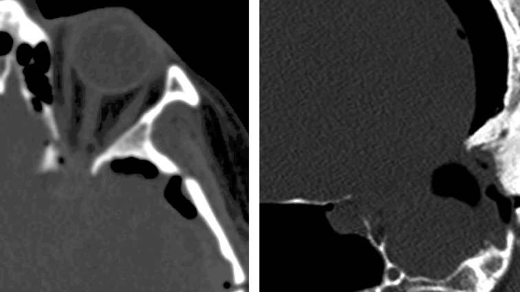 Figure 3: Aggressive elevation of the orbitozygomatic or pterional bone flap without its complete disconnection under direct vision along the orbital roof or lateral sphenoid wing should be avoided. Attempts to blindly fracture the bone flap at its margin at the hyperostotic lateral sphenoid wing in case of sphenoid wing meningiomas can lead to an inadvertent extension of the fracture into the optic canal (left) or ethmoid sinus (right) with resultant optic nerve injury or unrecognized postoperative CSF leak.