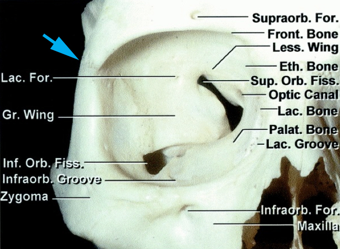 Figure 5: The modified OZ involves removal of the orbital rim, anterior orbital roof and part of the frontal process of zygoma. This osteotomy may be extended to the level of the inferior orbital fissure, but this is rarely necessary. The frontozygomatic suture (blue arrow) approximates the level of the orbital roof (image courtesy of AL Rhoton, Jr).