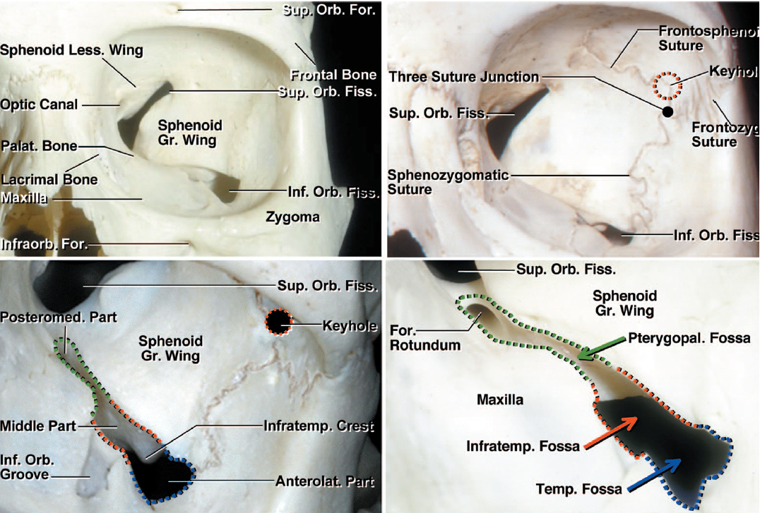 "Figure 6: Bony anatomy of the anterolateral skull base (left upper image) as it relates to the OZ is demonstrated. Note the location of the keyhole relative to frontozygomatic suture from inside the orbit (right upper and left lower images). The pterional ""keyhole"" that exposes only the frontal dura is more superiorly situated than the real McCarty keyhole used for OZ that exposes both the orbit and the frontal dura (images courtesy of AL Rhoton, Jr)."