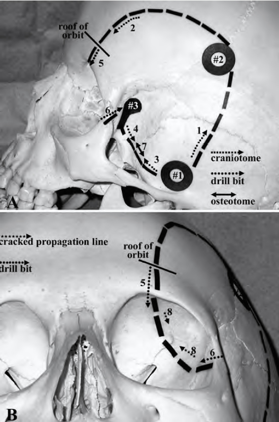 Figure 9: The steps in execution of a one-piece modified OZ are shown. The osteotomies corresponding to the steps 3, 4, 5, 6 and 7 are performed using a B1 drill bit without a footplate. Step 8 is done using a thin osteotome (images reproduced with permission from: Balasingam, V and colleagues. Modified osteoplastic orbitozygomatic craniotomy.  J Neurosurg  102:940-44, 2005).