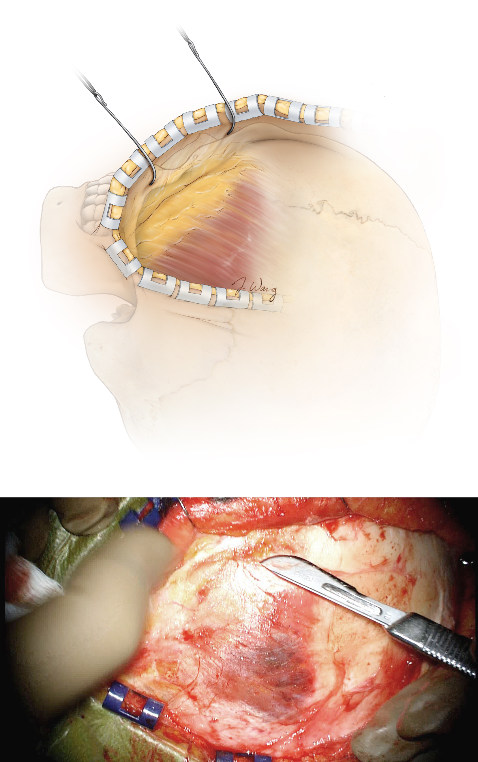 Figure 13: The plane between the galea and the pericranium is developed in case a vascularized pericranial flap is needed at the time of closure. The scalp flap is reflected anteriorly and is separated from the temporalis fascia. The belly of the #10 scalpel blade may be used to separate the pericranium from the galea. The fat pad is exposed.