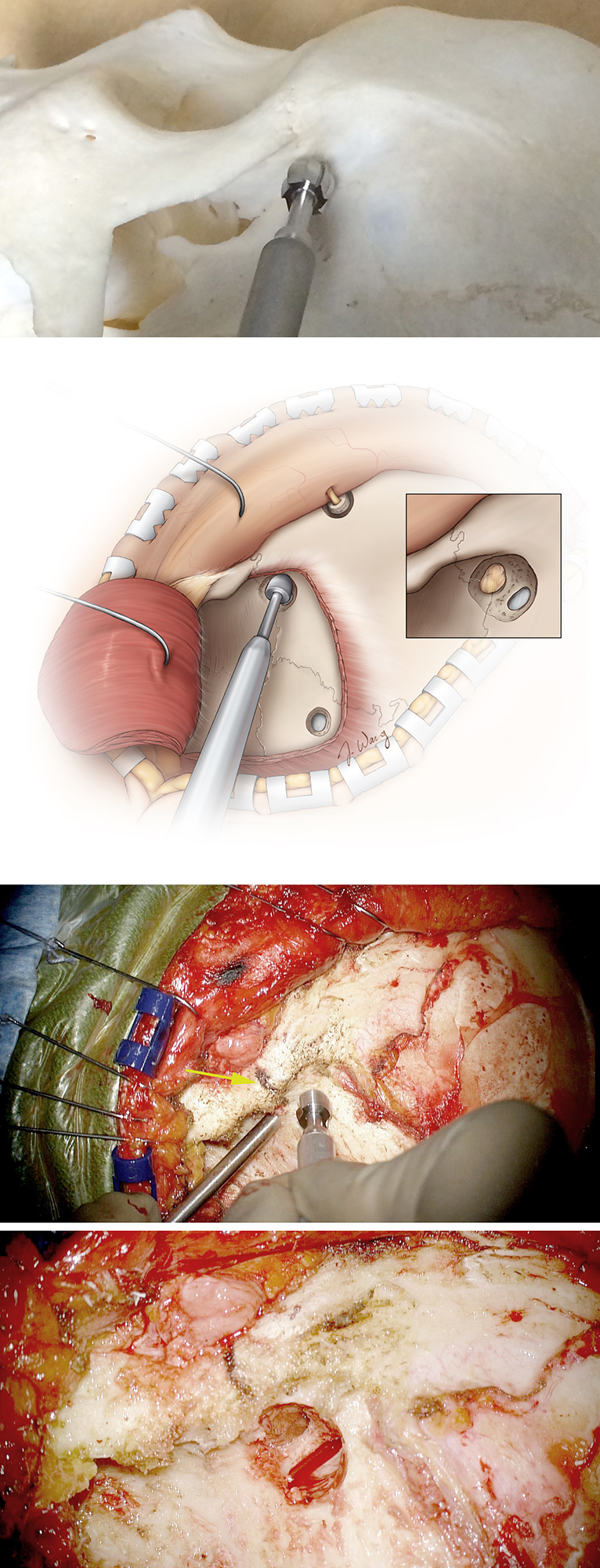 Figure 21: It is imperative to place the keyhole at the appropriate location and drill at the correct angle to expose both the periorbital and the frontal dura through the expanded burr hole. Accurate completion of the keyhole facilitates execution of the one-piece orbitozygomatic craniotomy and prevents excessive bone loss in the keyhole region and resultant cosmetic deformity.    The keyhole is made in the temporal fossa, about 7-mm superior and 5-mm posterior to the frontozygomatic suture (yellow arrow). The shaft of the drill is held at a 45 degree angle measured from the plane of the temporal bone. The supraposterior half of this burr hole exposes the dura of the anterior fossa, while the anteroinferior part exposes the periorbita (inset). The roof of the orbit divides these two compartments within the keyhole.