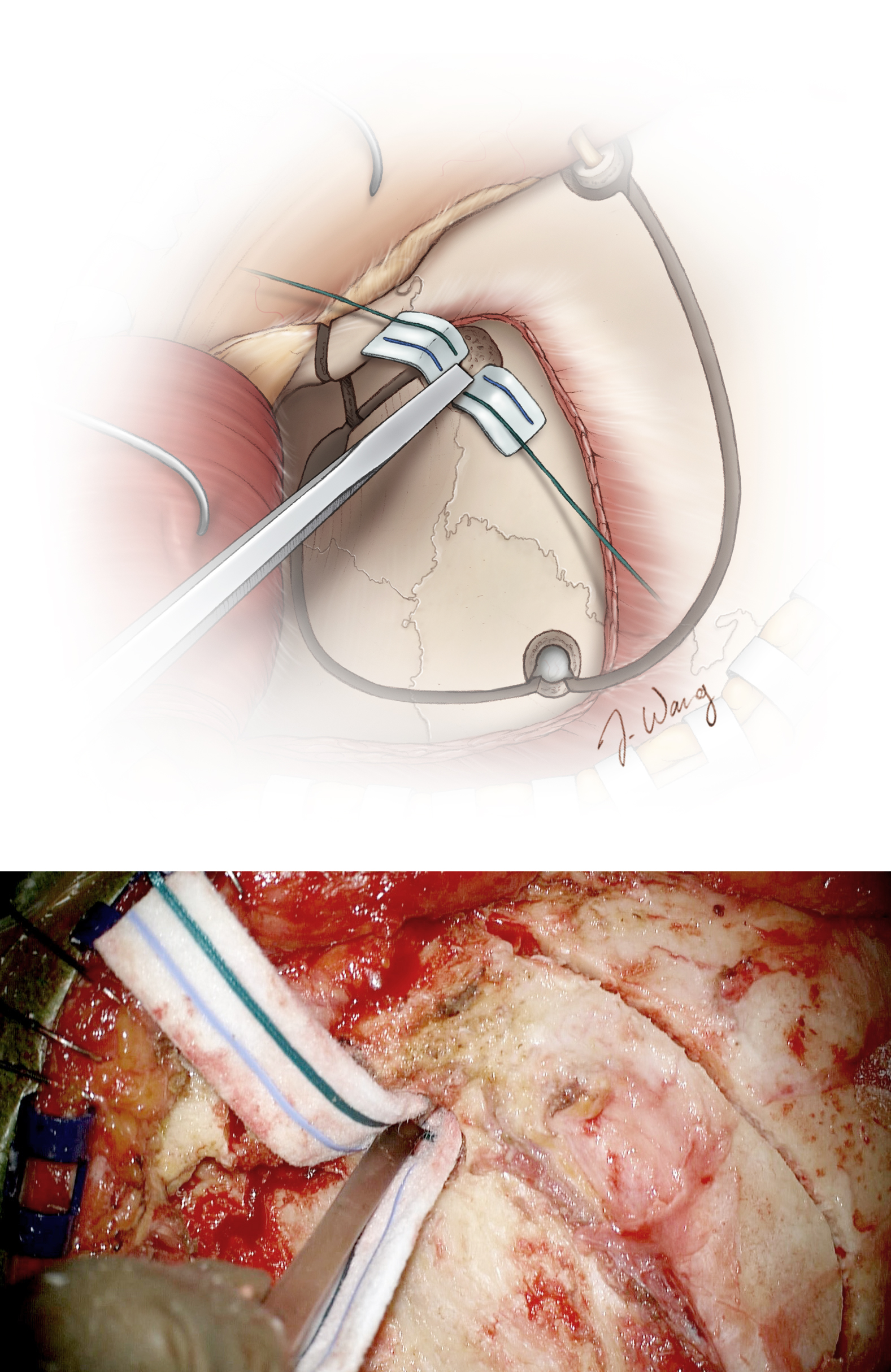 Figure 28: An alternative method for completing the orbital roof osteotomy involves the use of a small thin osteotome to cut across the roof of the orbit through the keyhole. Two cotton patties may be used to protect the frontal dura posteriorly and the periorbita inferiorly from the osteotome.