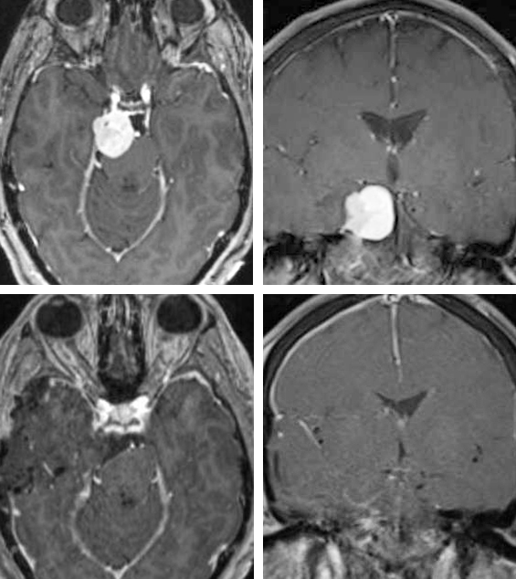 Figure 1: This right-sided upper petroclival/tentorial meningioma was removed via anterior petrosectomy (top photos). Note the extension of the tumor into the cavernous sinus; this small portion was not removed. The immediate postoperative scans are also included (bottom row).