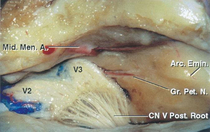 Figure 2: The bony anatomy of the middle fossa and petrous apex in relation to the surrounding tissues is demonstrated. Anterior petrosectomy involves removal of the bone housed in the middle fossa's posteromedial triangle, also known as Kawase's or quadrilateral triangle. This portion of the petrous apex is bordered anteriorly by the posterior margin of Meckel's cave containing the mandibular division of the trigeminal nerve, posteriorly by the arcuate eminence, laterally by the greater superficial petrosal nerve (GSPN), and medially by the superior petrosal sinus (image courtesy of AL Rhoton, Jr).