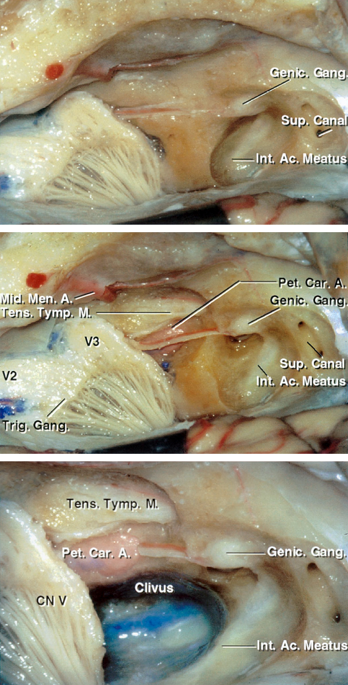 Figure 3: Stepwise resection of the petrous apex with skeletonization of the relevant surrounding anatomy is demonstrated. A close-up view of the right middle cranial fossa floor with the petrous apex and the bone over the IAC removed (lower image). Note the internal carotid artery along the anterolateral border of the bony resection. The inferomedial extent of the osteotomy is ultimately bounded by the clivus. The greater and lesser superficial petrosal nerves are parallel to the petrous carotid artery (images courtesy of AL Rhoton, Jr).