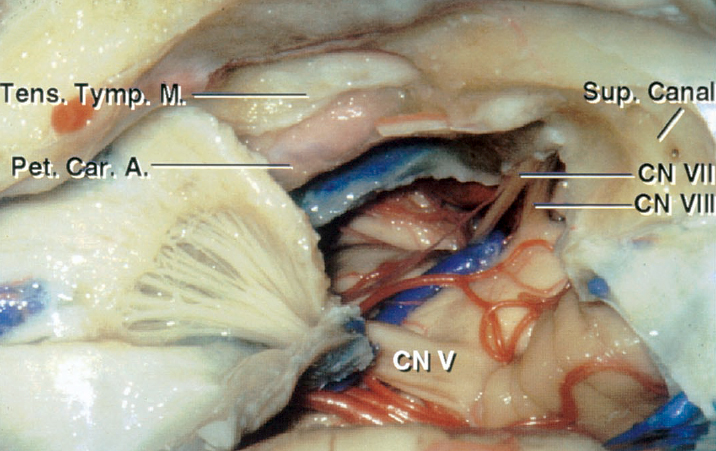 Figure 4: Intradural exposure after an anterior petrosectomy is shown. Note the location of the basilar artery and the extent of access to the anterolateral pons (image courtesy of AL Rhoton, Jr). The bony roof of the ICA is usually left intact and not removed. Deformation of these vital structures by the lesion alters the anatomy and the available working space after lesional decompression. These vital structures are often identified during the later stages of the operation and not easily exposed early.