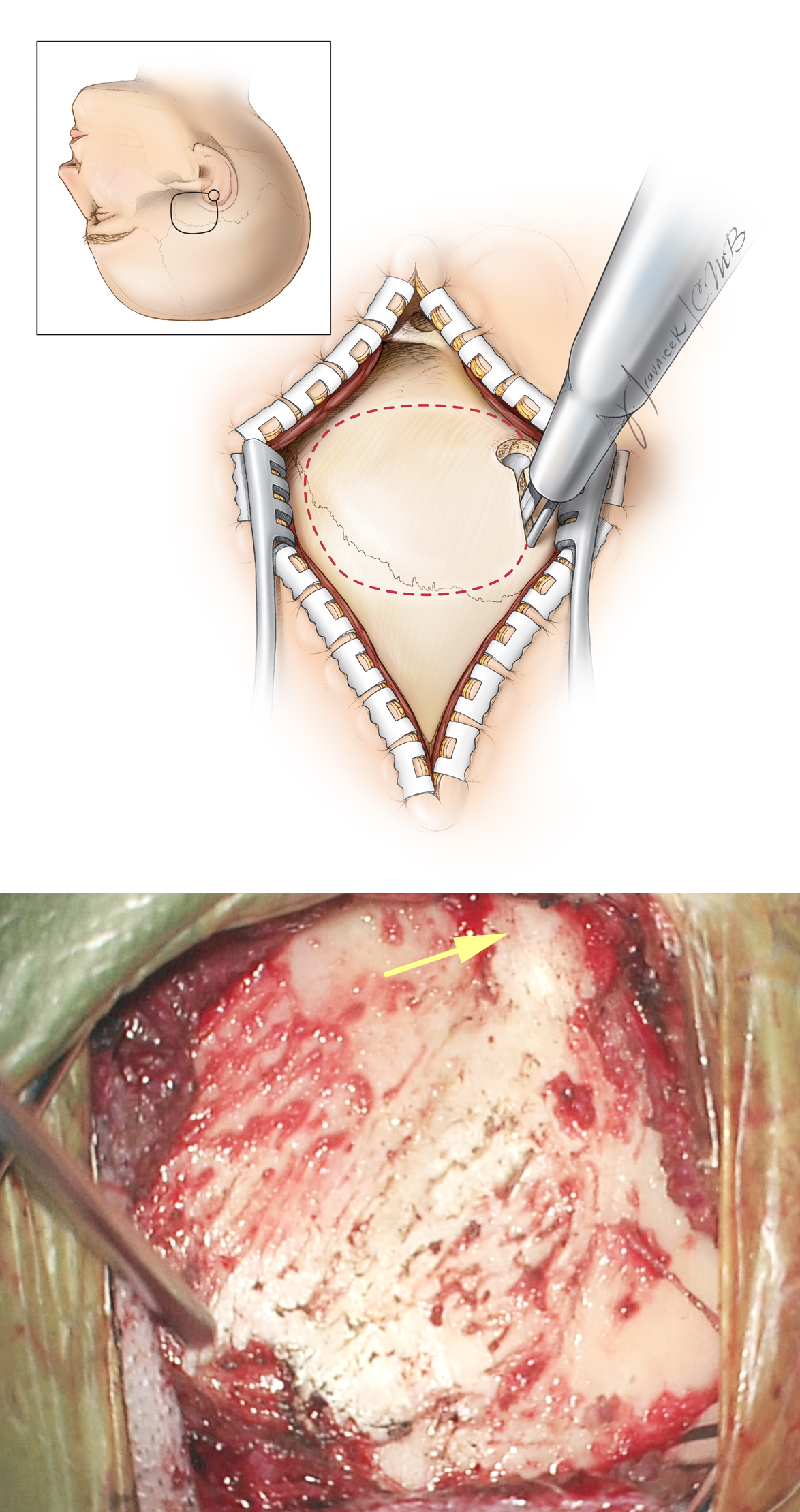 Figure 8: Craniotomy through a linear incision is illustrated. In this case, the fibers of the temporalis muscle are split longitudinally and the muscle attachments along the superior temporal line disconnected. When compared with the horseshoe incision, the posterior extent of exposure may be slightly compromised.  Regardless which incision is used, the width of the craniotomy is two-thirds anterior and one-third posterior to the IAC. The root of the zygoma is exposed (arrow).