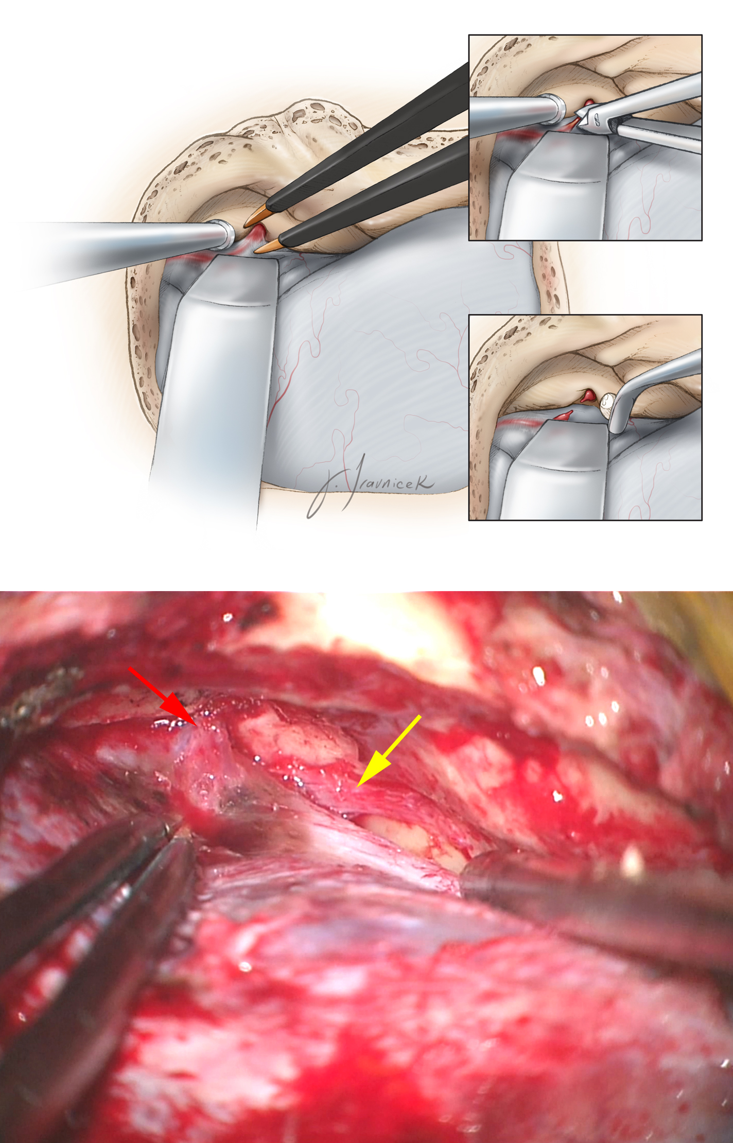 Figure 11: The dura over the floor of the anterior aspect of the middle fossa is now generously elevated. The middle meningeal artery (red arrow), entering through the foramen spinosum, is identified along the anterior aspect of the bone exposure. The artery must be coagulated on its dural side and transected. Next, I pack the foramen with bone wax and oxidized cellulose. Stripping of the dura anteriorly must stop at this point to avoid direct injury to the greater (GSPN)(yellow arrow) and lesser superficial petrosal nerves (LSPN), leading potentially to dry eyes. Inadvertent traction on the GSPN will also place the facial nerve at risk.  The surgeon can minimize the risk of this type of injury by lifting the dura in a posterior-to-anterior direction.