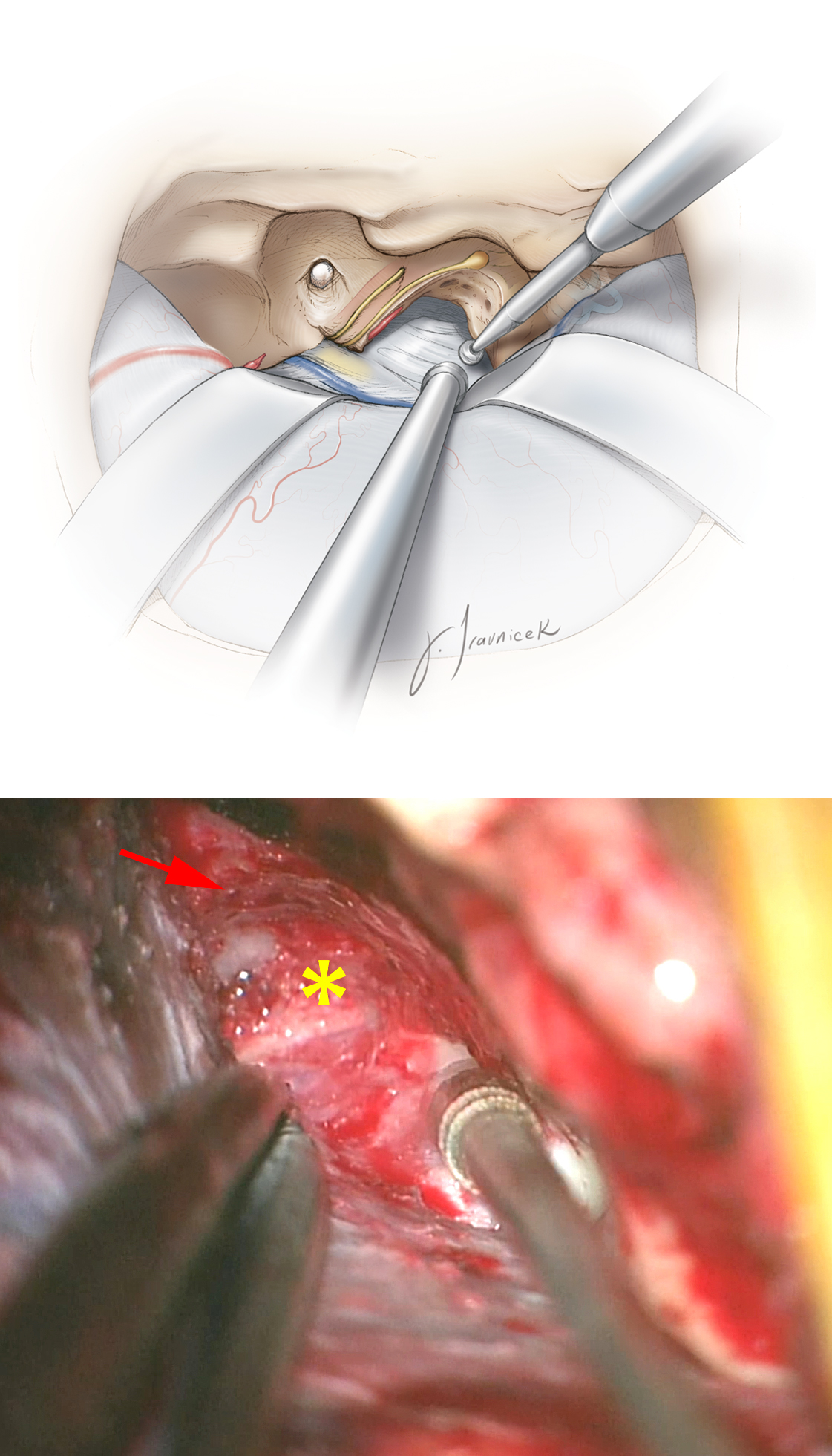 Figure 14: All of the bone between the V3 anteriorly, the ICA and the cochlea laterally, and the superior semicircular canal and the IAC posteriorly is drilled away until the dura of the posterior fossa is reached, thereby completing the anterior transpetrosal osteotomy. A monopolar stimulating probe may be used for transdural mapping of the facial nerve. The bone along the margins of the cochlea is very compact and distinguishable from the cancellous bone of the petrous apex. Moreover, resection of bone can proceed beneath the trigeminal nerve as far as the lateral aspect of the clivus (*); however, the operator must take great care to prevent injury to cranial nerve V. Also, copious irrigation is necessary to prevent thermal injury to cranial nerve VI in the Dorello's canal while drilling the medial extent of exposure. The operative corridor can be even further extended caudally by following the posterior fossa dura as far as the inferior petrosal sinus. The route of the carotid artery is marked with the red arrow. The posterior fossa dura is at the tip of the suction device.