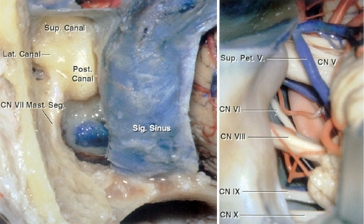 Figure 4: Extradural (left image) and intradural (right image) exposures through a left-sided posterior petrosectomy or presigmoid osteotomy are shown (images courtesy of AL Rhoton, Jr).