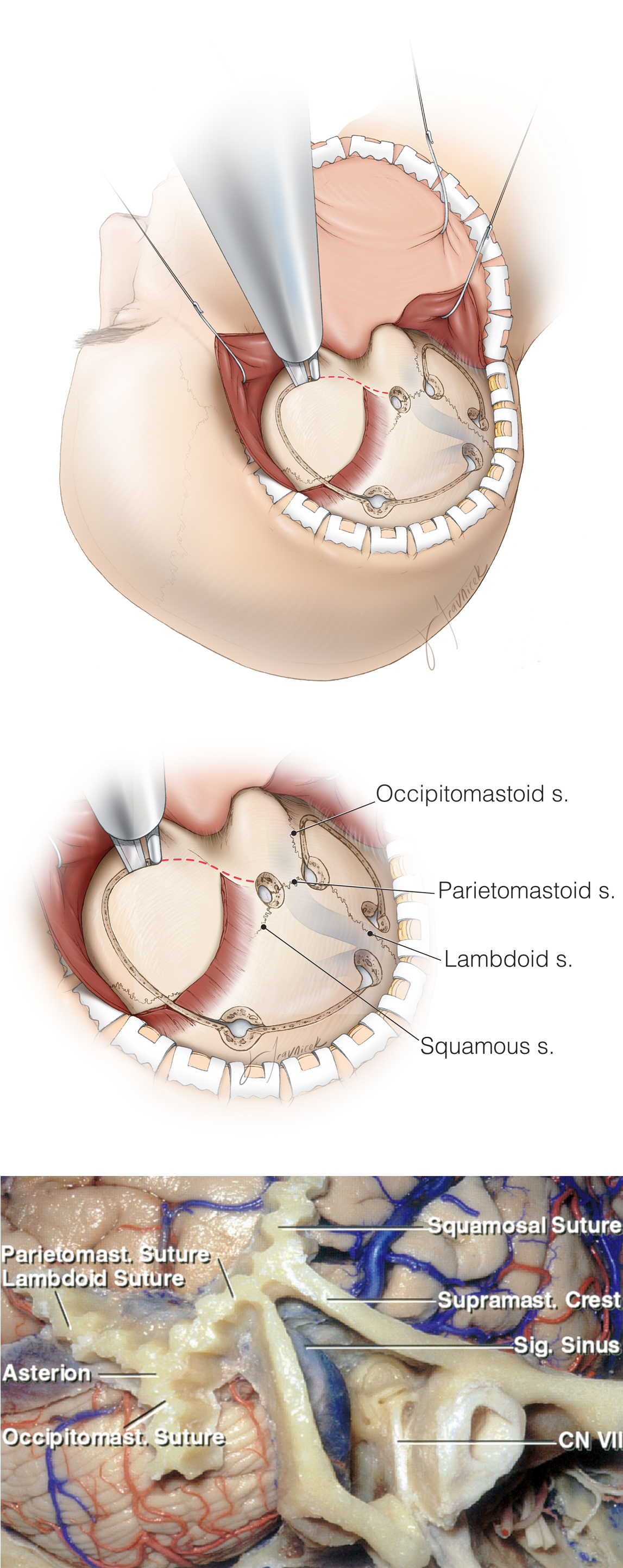 Figure 7: The craniotomy for posterior petrosal approach includes both a temporal and a suboccipital component. I make four burr holes, two sets on each side of the transverse sinus. The first burr hole is placed immediately medial and inferior to the asterion. This burr hole gives access to the infratentorial compartment.    The second burr hole is made at the junction of the squamous and parietomastoid sutures (upper and middle images). This burr hole provides access to the supratentorial compartment. The space between these two burr holes contains the transverse-sigmoid junction. A second set of burr holes is placed more medially above and below the superior nuchal line, flanking the transverse sinus.    A high-speed drill with a foot attachment is used to elevate subtemporal and suboccipital-retromastoid craniotomies. I avoid the use of the footplate attachment over the dural sinuses since these sinuses are often embedded in the inner surface of the skull bone and tenaciously adherent. The anatomy of the sutures in the region is further depicted in the lower image (images courtesy of AL Rhoton, Jr).