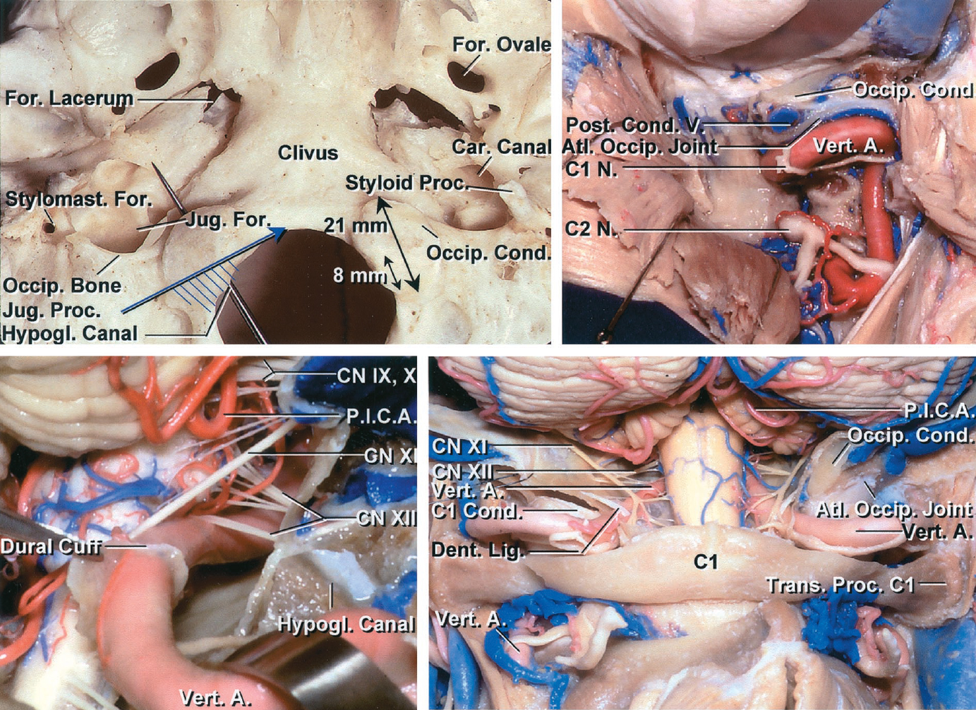 Figure 3: The  hashed area  in the left upper image defines the maximal required extent of condylectomy for purely ventral craniocervical lesions. Early identification of the vertebral artery on the lateral arch of C1 (sulcus arteriosus) is the first step in this approach.  Note the location of the posterior condylar vein as a landmark to assist with the extent of condylectomy (right upper image).  The vein is along the lateral aspect of the condyle. Once I reach the vein, I drill only the outer shell of the condyle. The lower images demonstrate other relevant anatomy of the region including cranial nerve XII (images courtesy of AL Rhoton, Jr).