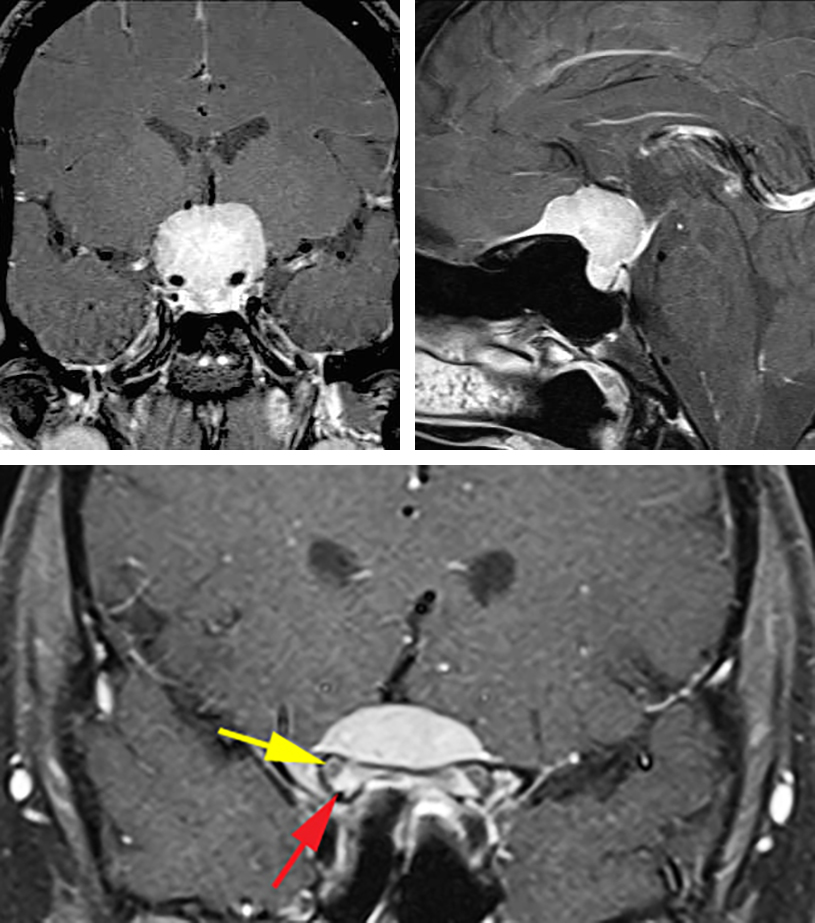 Figure 2: This classic large TSM is best suited for a transcranial approach rather than an endoscopic transnasal route due to its large size, expanse and significant encasement of the vasculature. Note the lack of sellar enlargement (left upper image) and presence of a dural tail (right upper image) as distinguishing features of the tumor. The tumor had infiltrated into bilateral optic canals with the right canal more affected than the left (lower image). The red arrow points at the intracanalicular enhancing tumor while the yellow arrow indicates the displaced optic nerve.