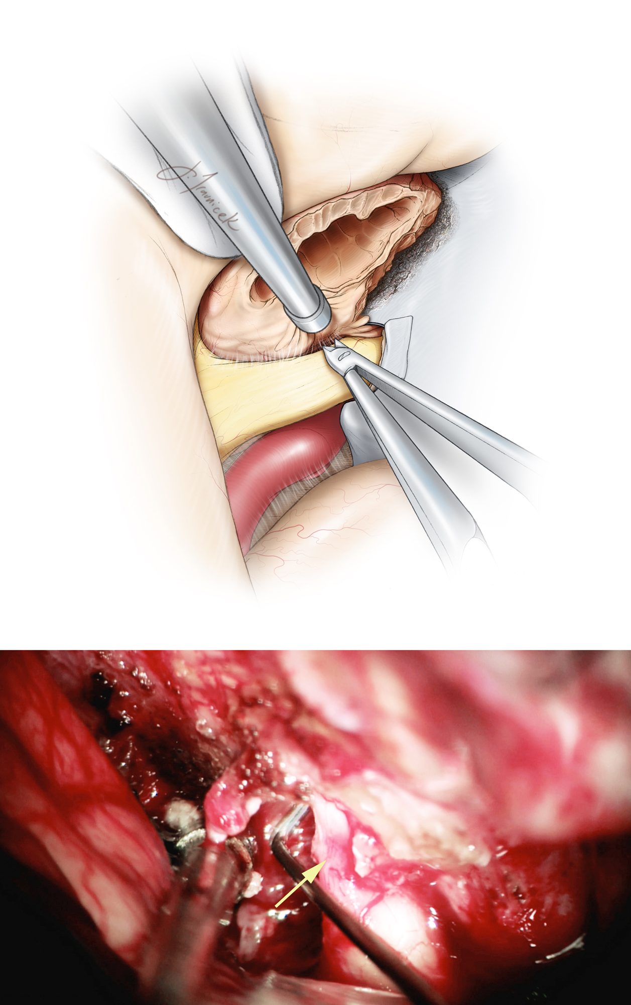 Figure 10: After aggressively debulking the tumor, I use sharp microsurgical techniques to dissect the arachnoid planes between the tumor capsule and ipsilateral optic nerve and chiasm. The tumor can flatten and attach to the nerve, complicating creation of a safe dissection plane between the nerve and the tumor. In this circumstance, the surgeon should patiently dissect and gently mobilize the tumor away from the nerve. If dissection planes cannot be safely developed, a thin sheet of tumor is left on the nerve and the optic foramen is unroofed. The site of nerve compression after opening of the falciform ligament is demonstrated (lower photo, arrow).    The anterior cerebral and internal carotid arteries are usually not densely adherent to the tumor and are readily dissected away.  Care is taken to preserve the small branching vessels originating from the medial aspect of the internal carotid artery supplying the optic nerves and chiasm. These small perforating vessels also arise from the superior hypophyseal artery complex.