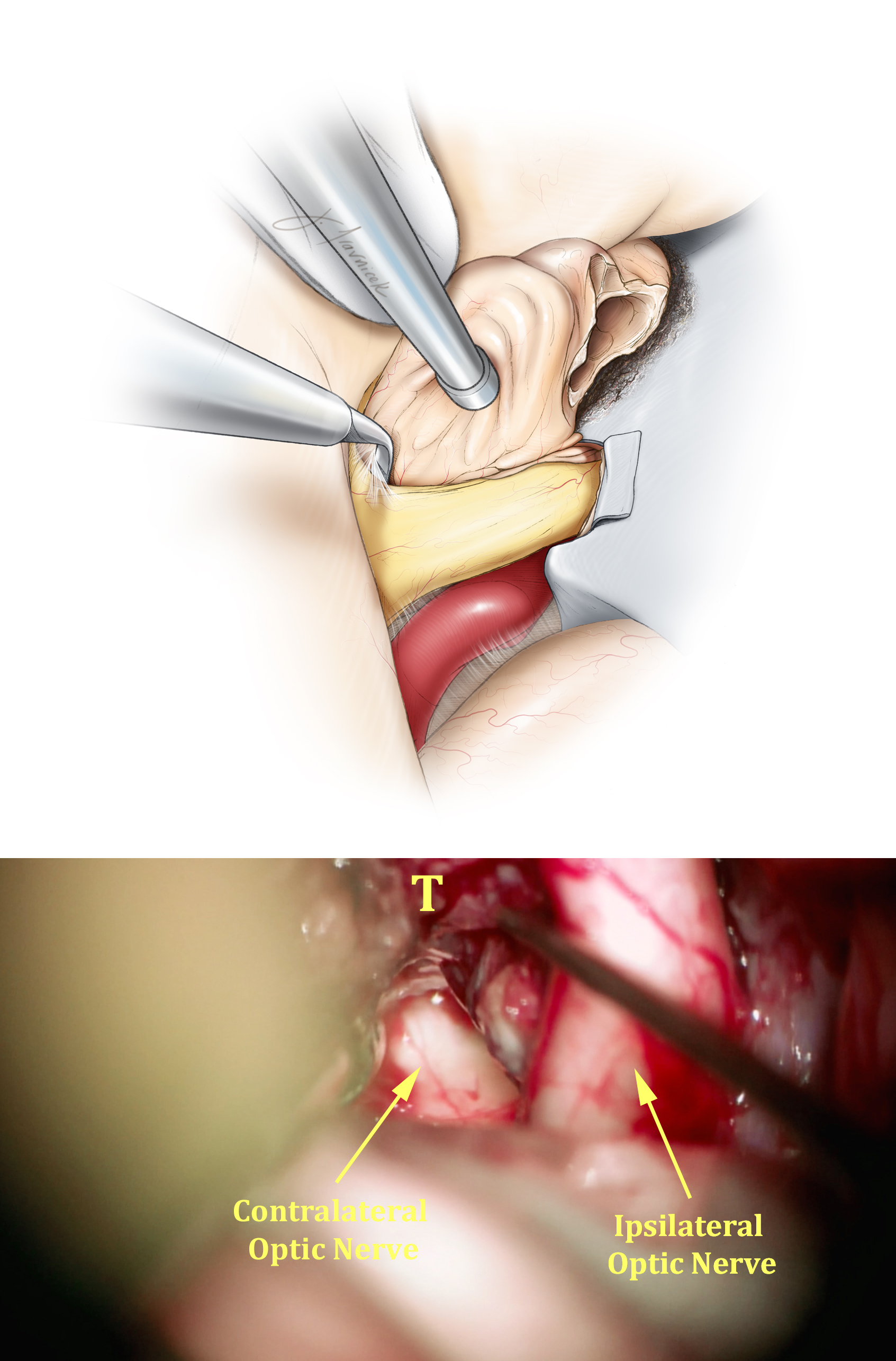 Figure 11: Continuing sharp arachnoid dissection while preserving all pial planes, I carefully extract the tumor away from the ipsilateral optic nerve and chiasm from the anterior to posterior direction (top illustration).  This critical step leads to the exposure of the contralateral chiasm and posterior aspect of the contralateral optic nerve (bottom photo, T:Tumor).  Aggressive manipulation of the chiasm invariably leads to worsening of vision. The tumor should be mobilized away from the chiasm, not vice versa. Anterior cerebral arteries are also released from the superior pole of the tumor capsule at this step of the operation. Extra-pial capsular dissection will detach the tumor from the base of the frontal lobe.