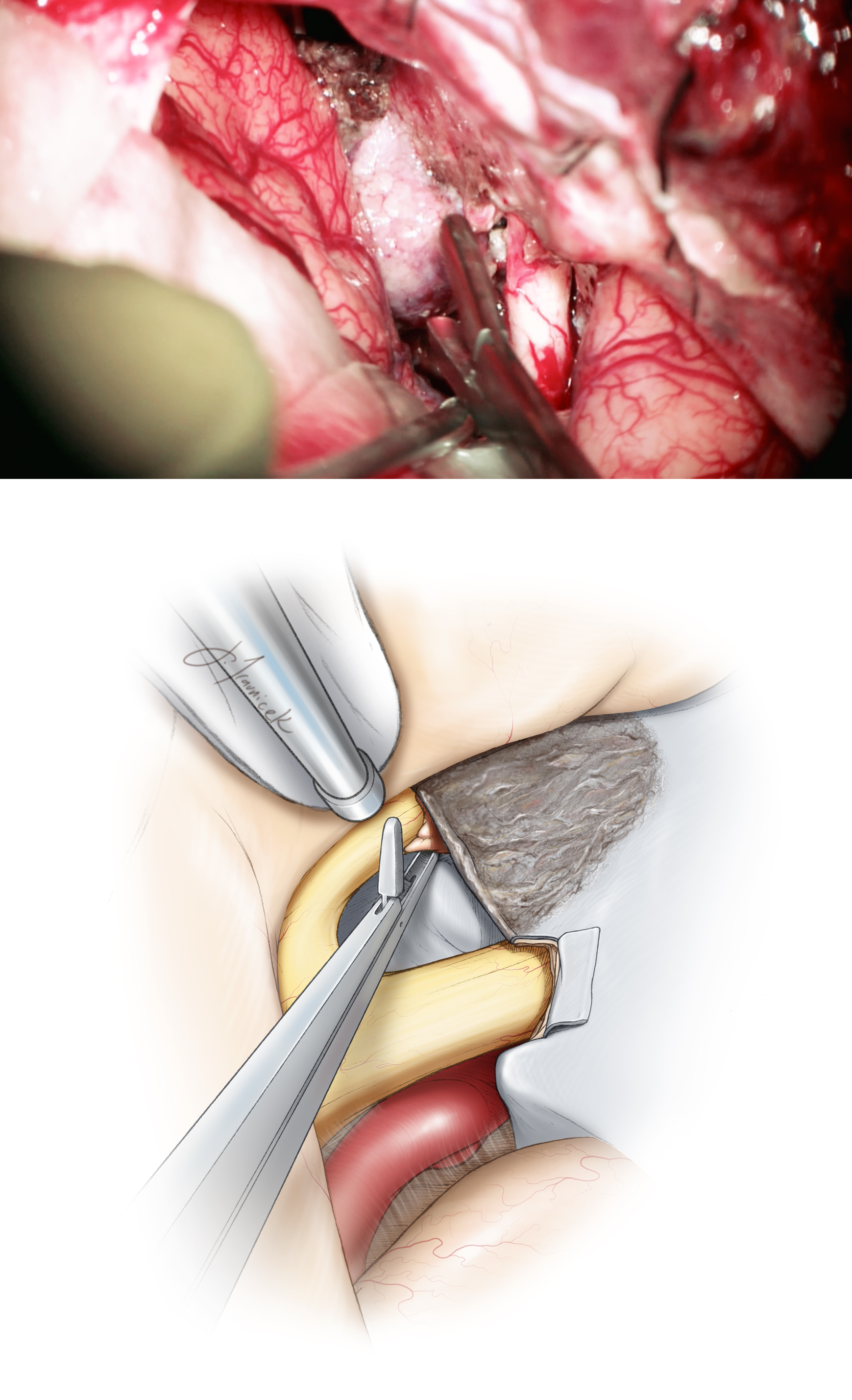 Figure 12: The bulk of the tumor is removed (upper photo). It is necessary to inspect both optic canals for presence of any residual or overlooked tumor. The medial aspect of the canal is most easily inspected along the contralateral optic nerve by using a cross-court approach (bottom illustration). Inadequate removal of the tumor may potentially account for delayed visual deterioration due to swelling of the residual tumor within the canal. The intracanalicular components of the tumor are typically nonadherent and can be dislodged using fine pituitary rongeurs.